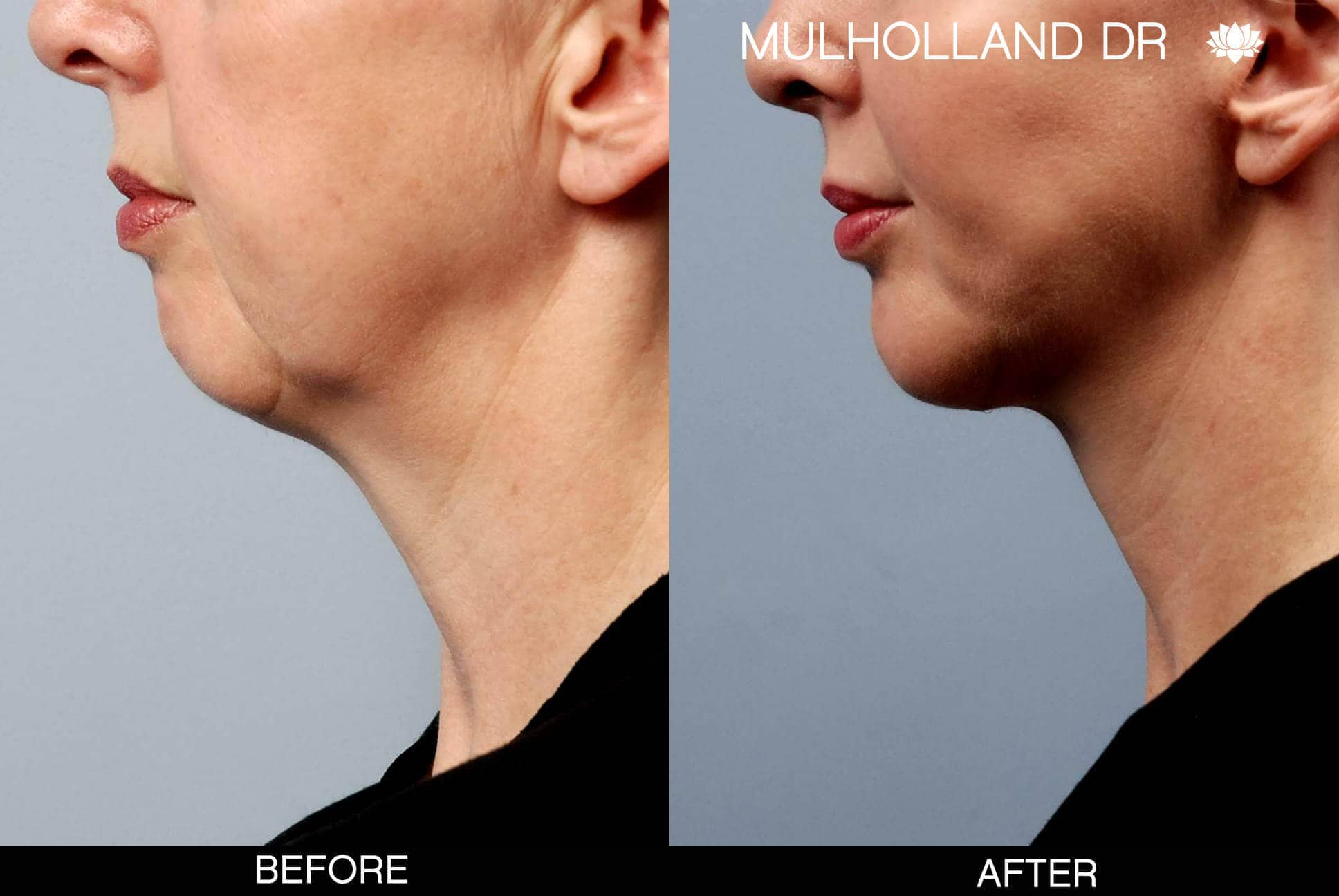 Neck Lift- Before and After Gallery – Photo 16