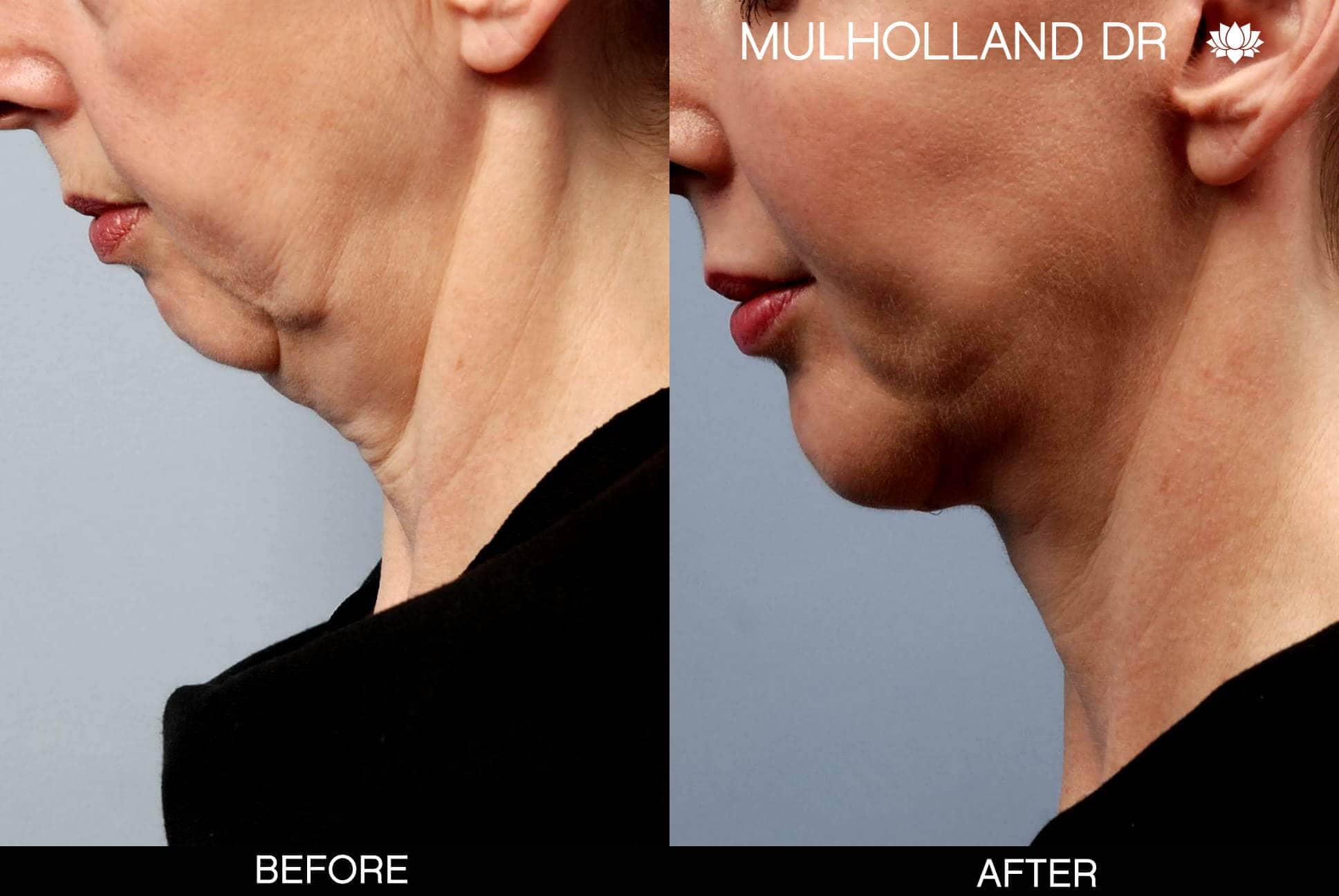 Neck Lift- Before and After Gallery – Photo 17