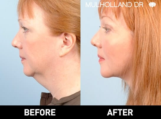 Neck Lift- Before and After Gallery – Photo 18