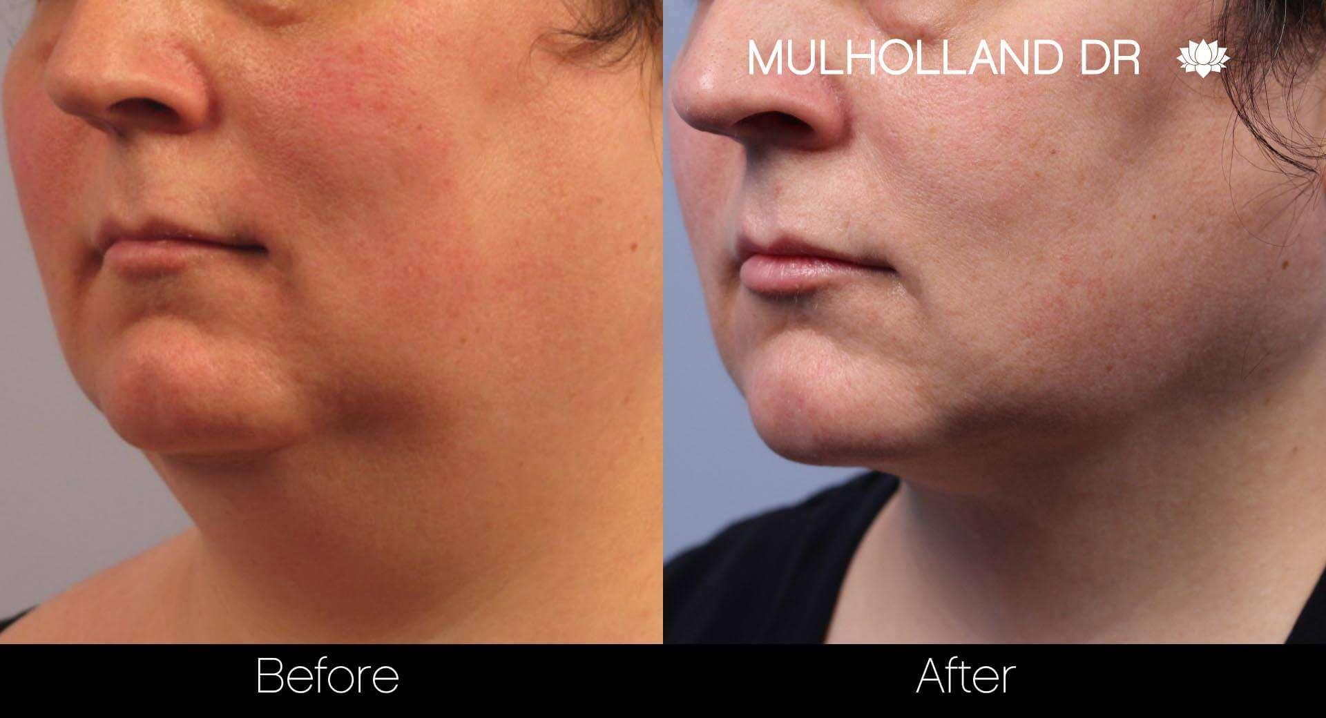 Neck Lift- Before and After Gallery – Photo 19