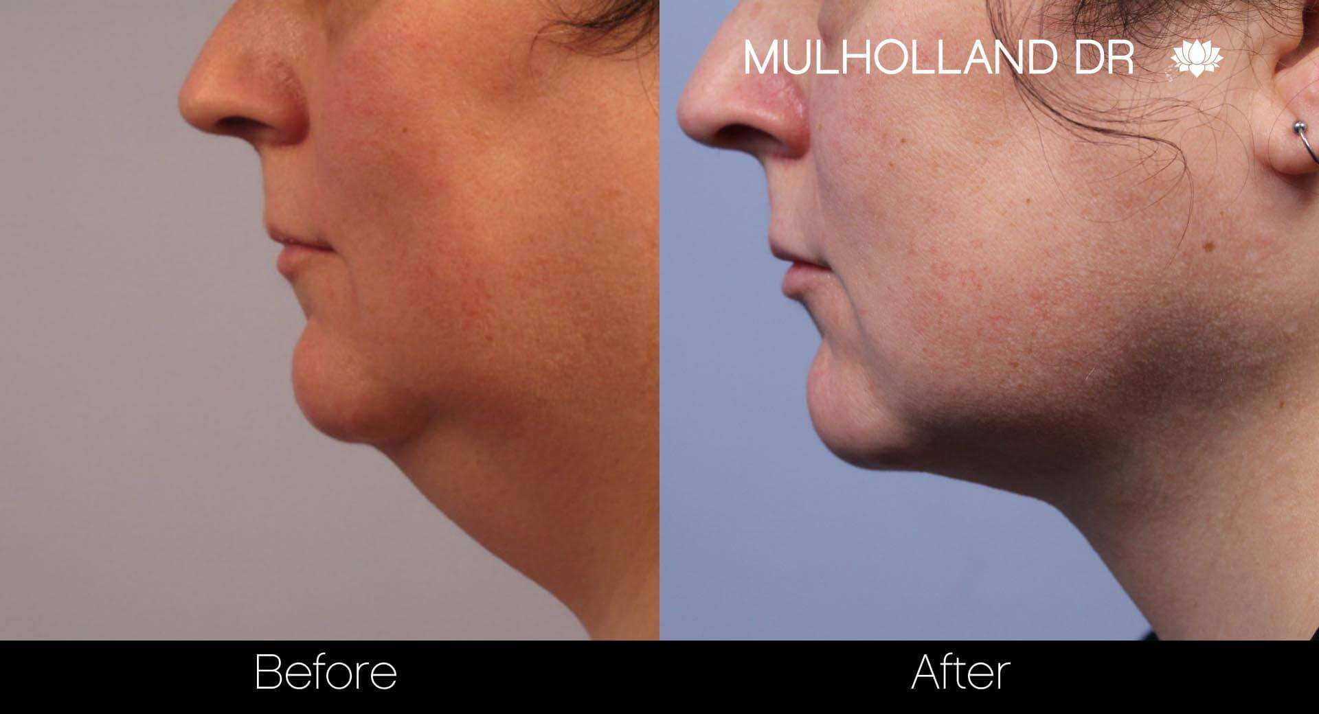 Neck Lift- Before and After Gallery – Photo 20