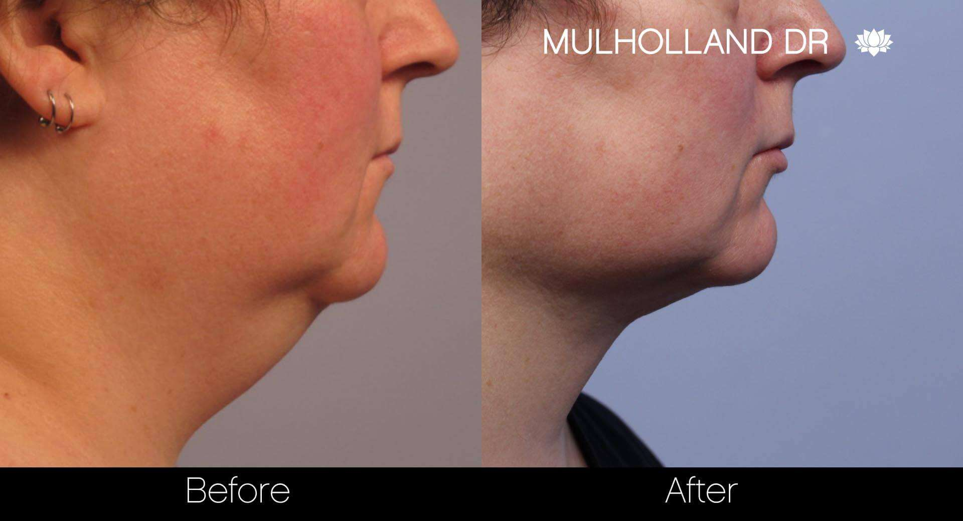 Neck Lift- Before and After Gallery – Photo 21