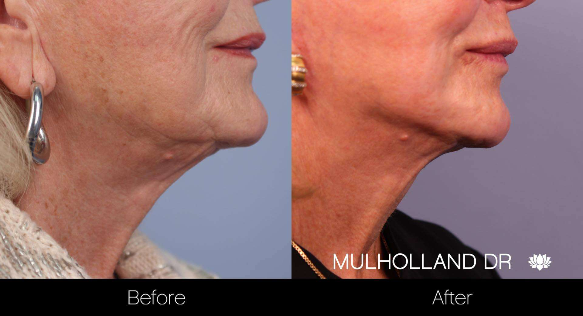 Neck Lift- Before and After Gallery – Photo 22