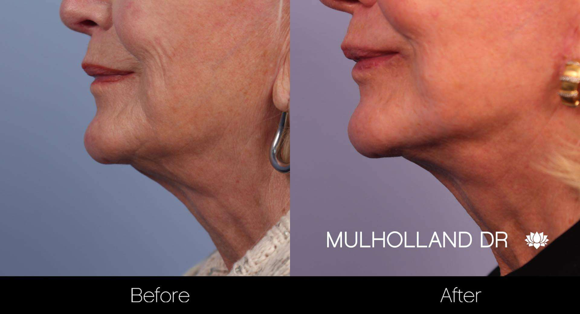 Neck Lift- Before and After Gallery – Photo 23