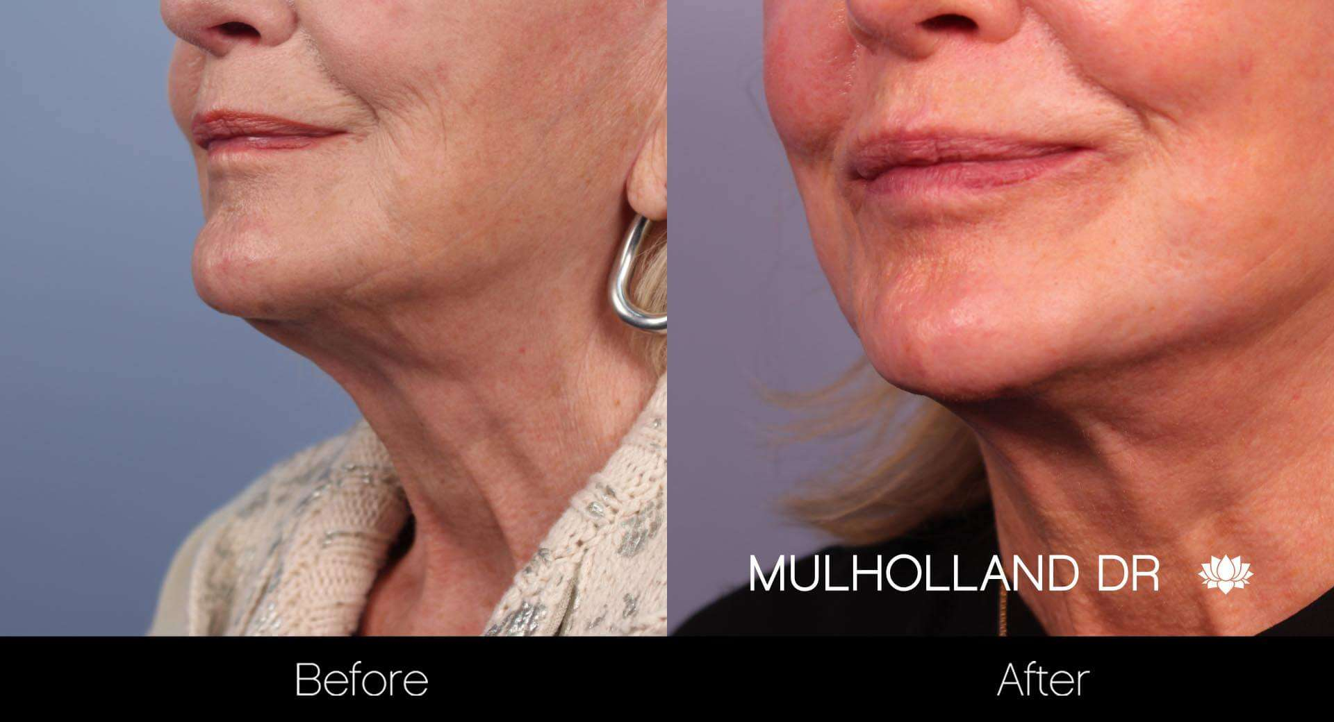 Neck Lift- Before and After Gallery – Photo 24