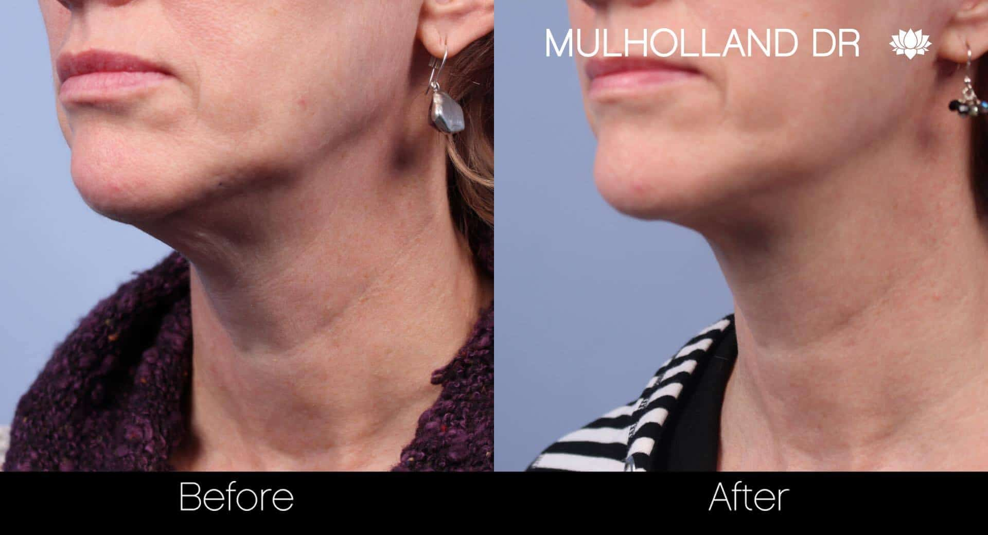 Neck Lift- Before and After Gallery – Photo 25