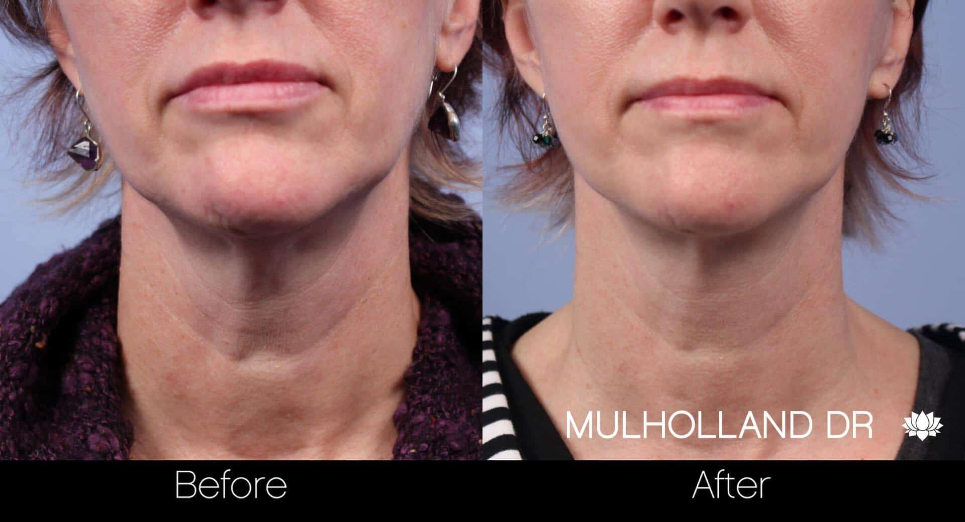 Neck Lift- Before and After Gallery – Photo 26