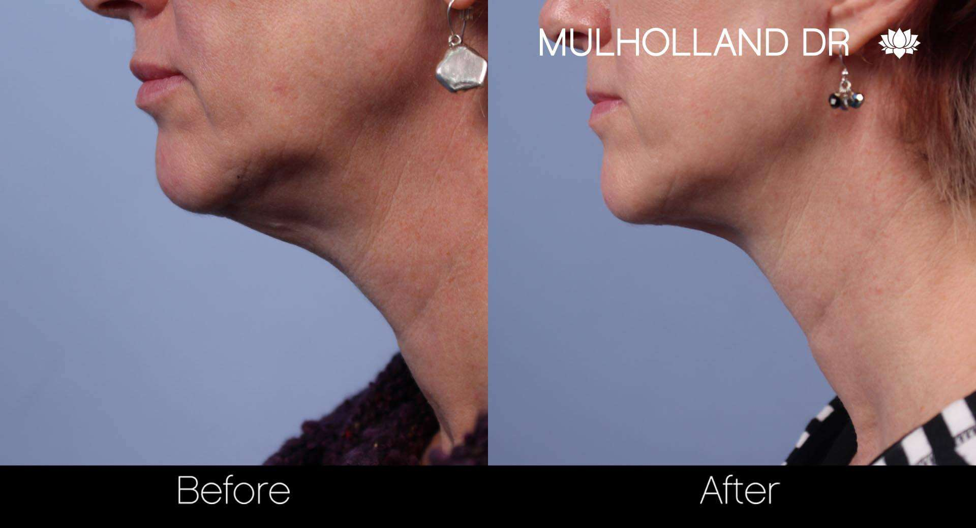 Neck Lift- Before and After Gallery – Photo 27