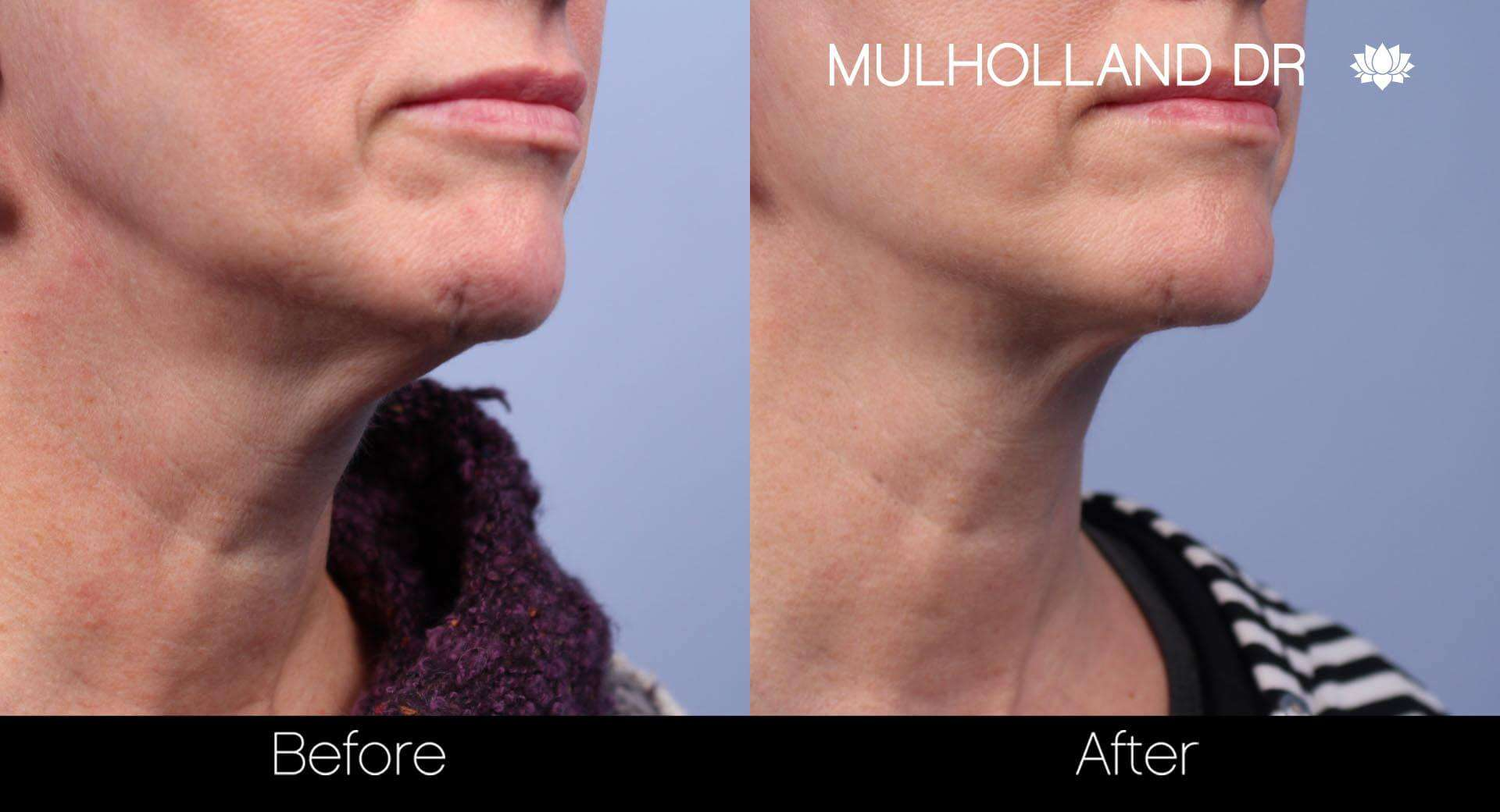 Neck Lift- Before and After Gallery – Photo 28