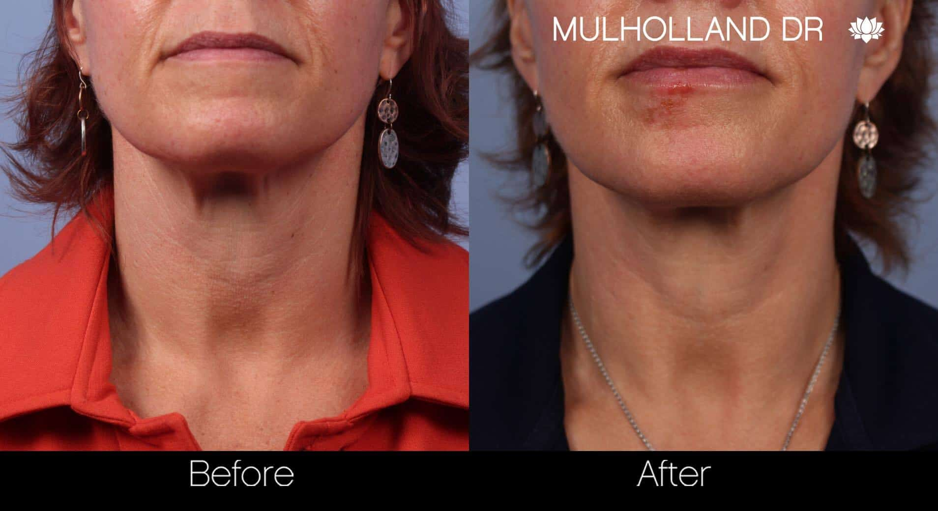 Neck Lift- Before and After Gallery – Photo 30