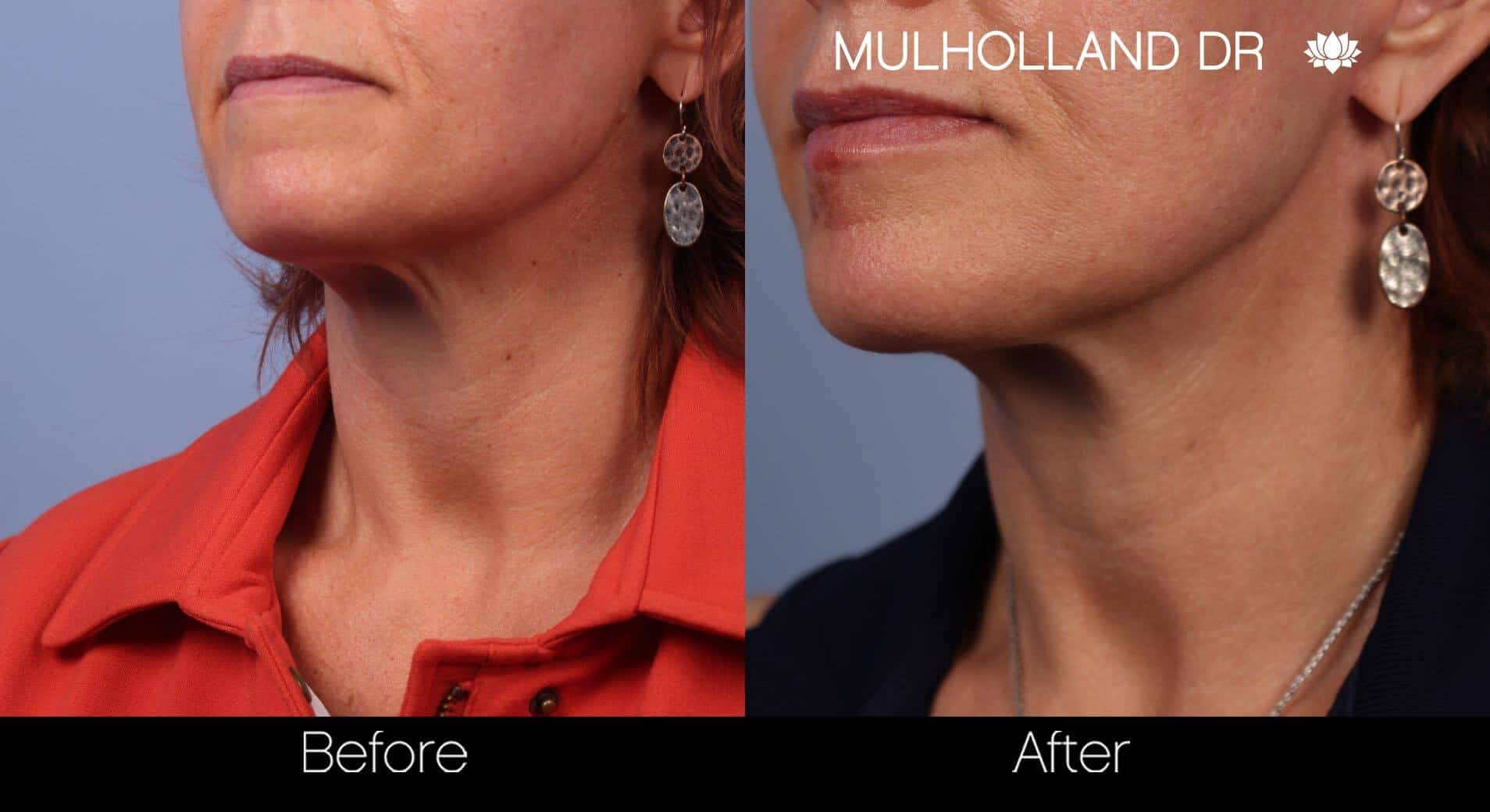 Neck Lift- Before and After Gallery – Photo 31