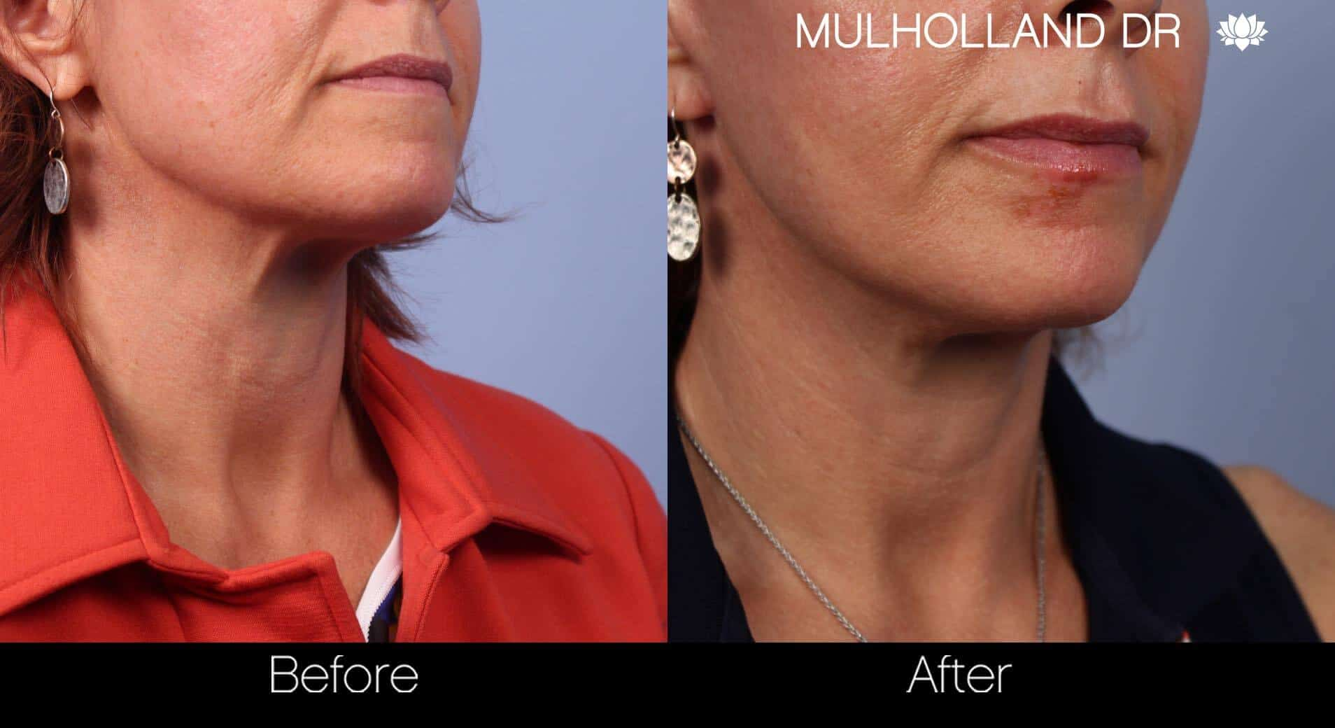 Neck Lift- Before and After Gallery – Photo 32