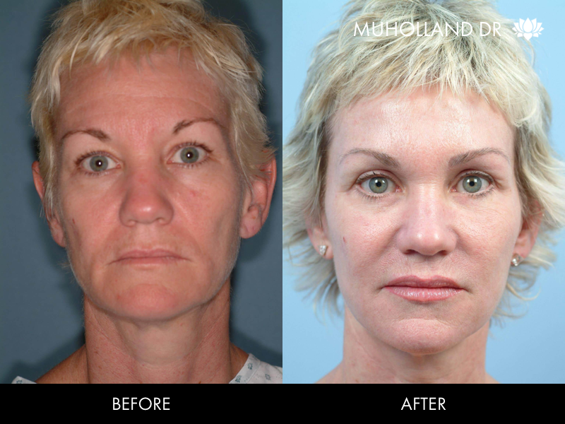 ThreadLift - Before and After Gallery – Photo 30