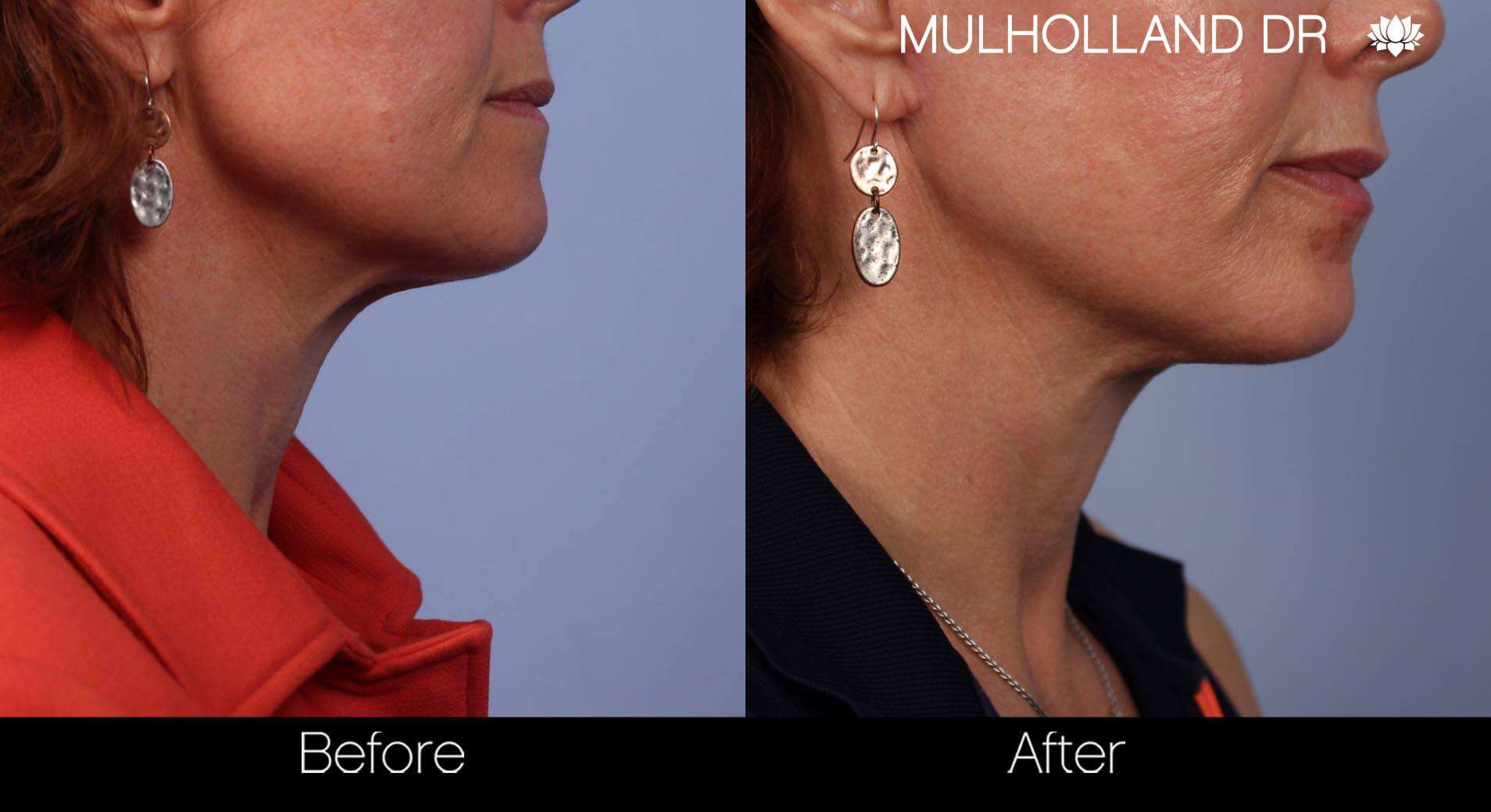 Neck Lift- Before and After Gallery – Photo 33