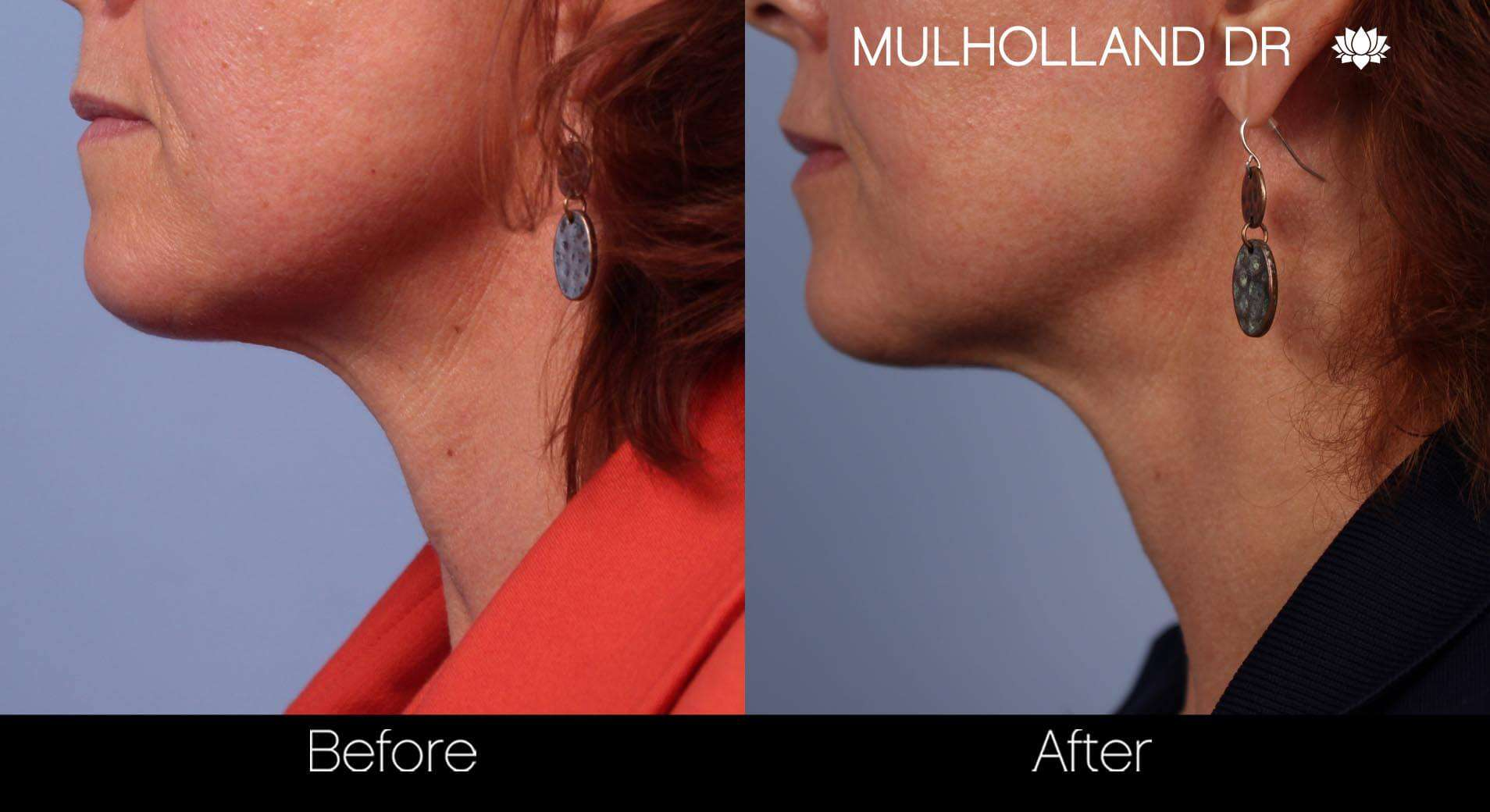 Neck Lift- Before and After Gallery – Photo 34