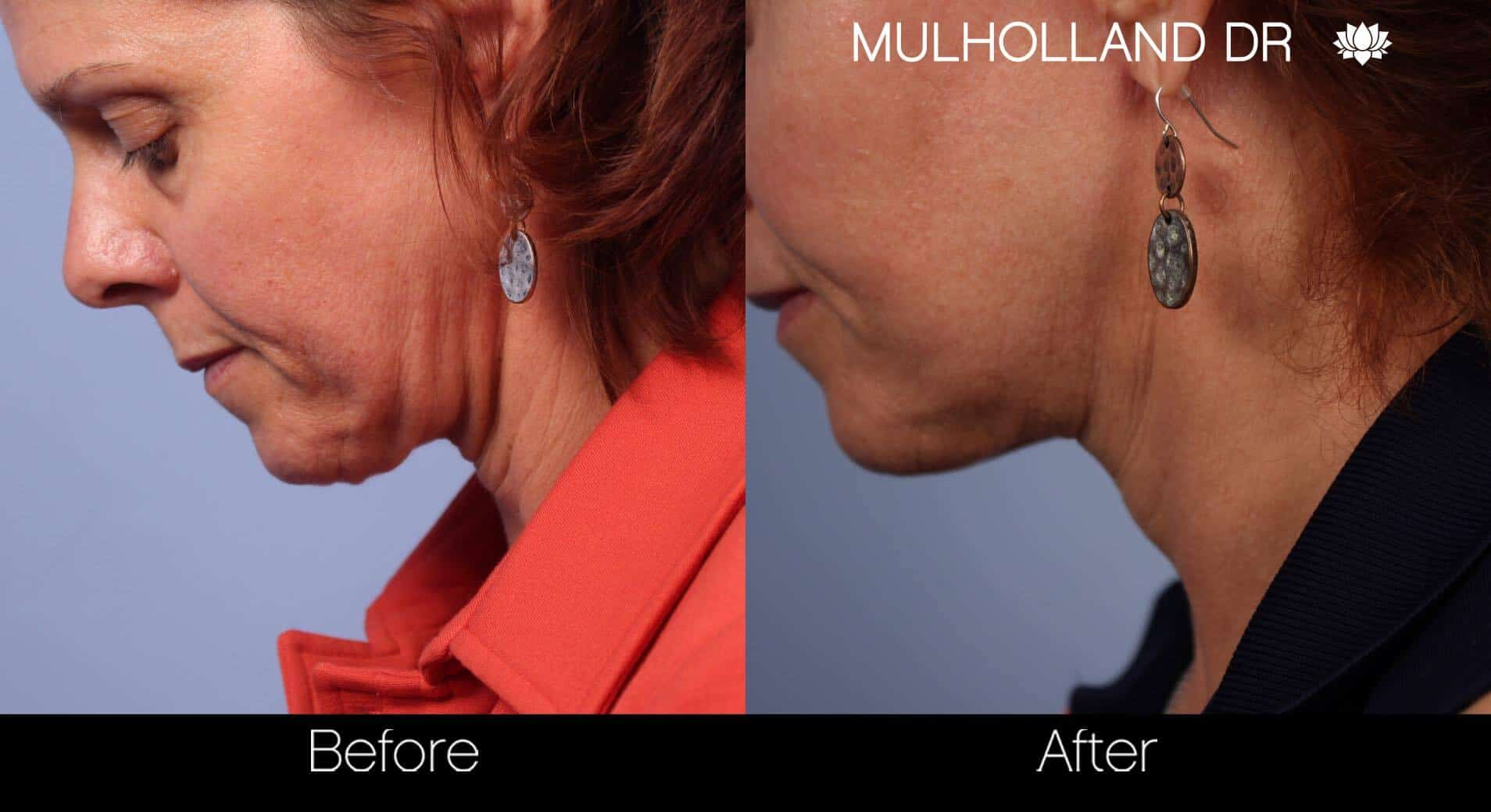 Neck Lift- Before and After Gallery – Photo 35