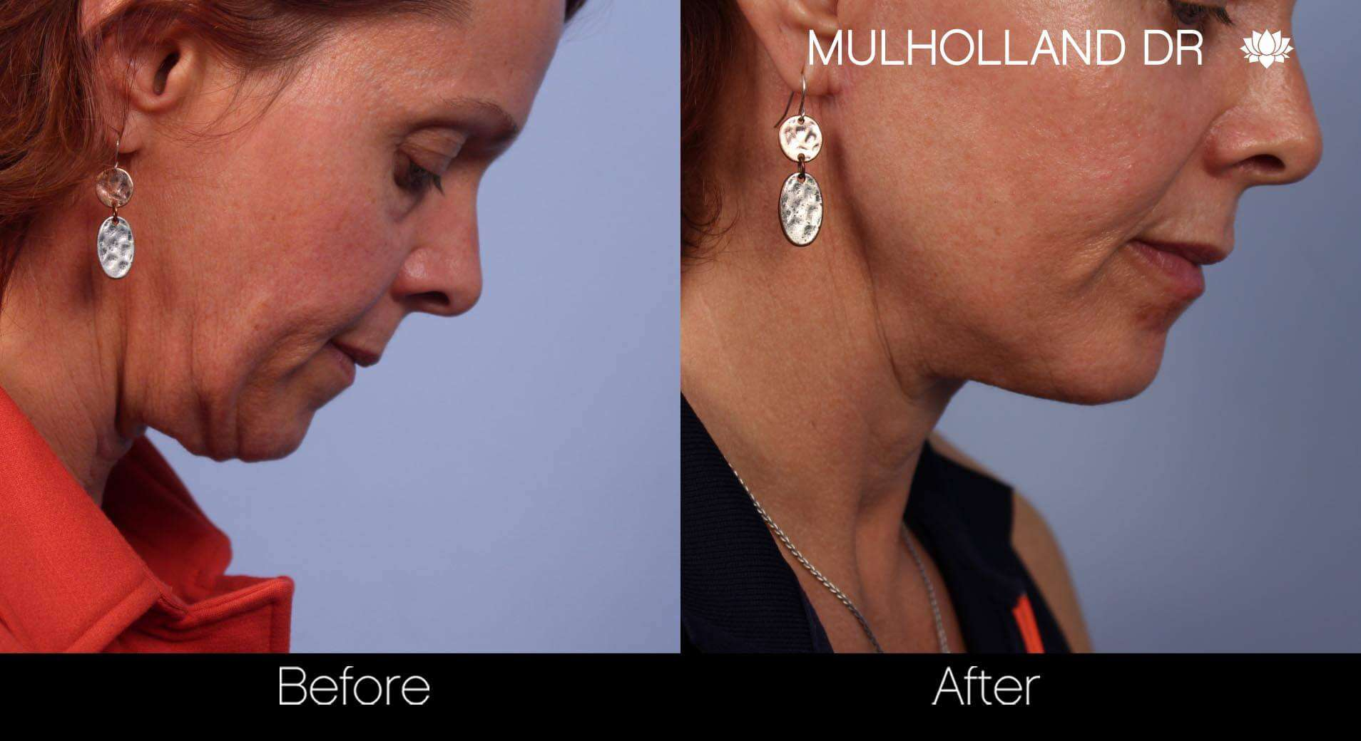 Neck Lift- Before and After Gallery – Photo 36