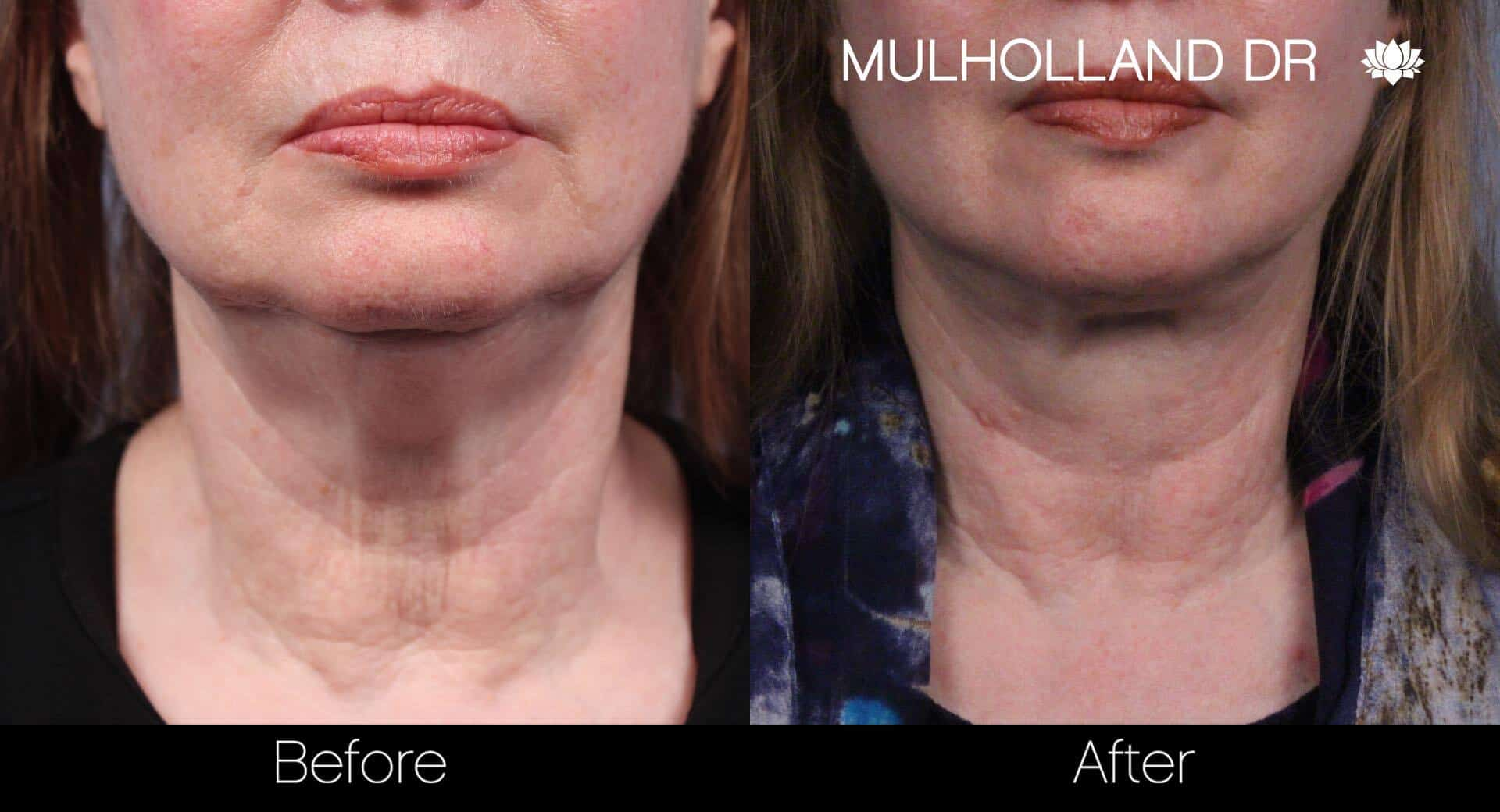 Neck Lift- Before and After Gallery – Photo 37