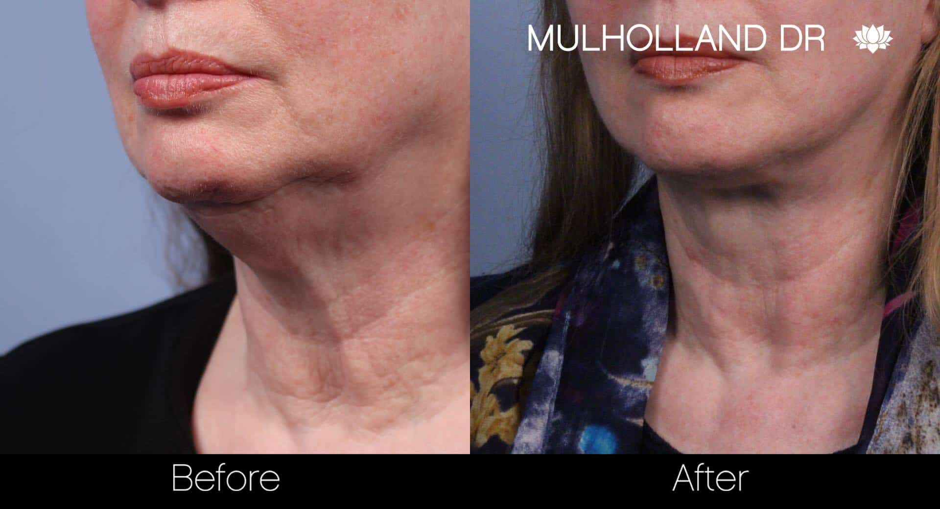Neck Lift- Before and After Gallery – Photo 38