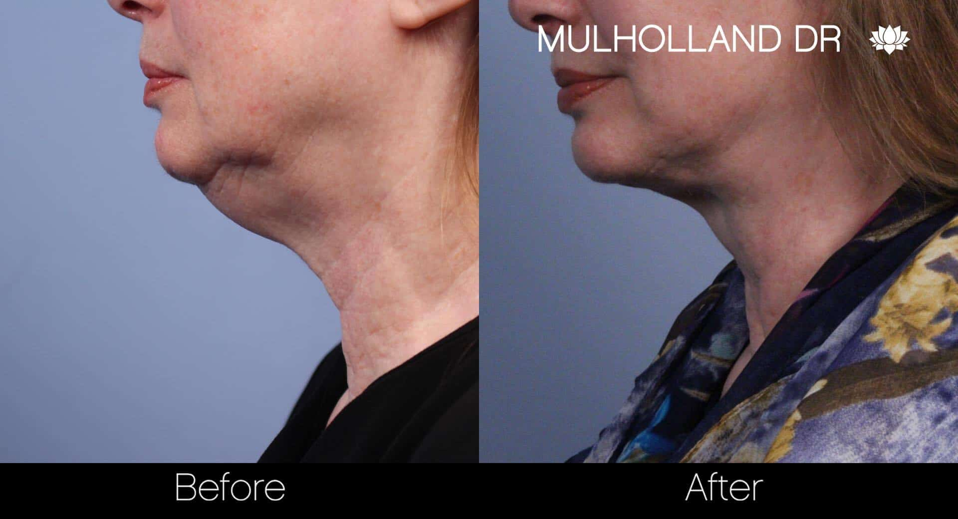 Neck Lift- Before and After Gallery – Photo 39