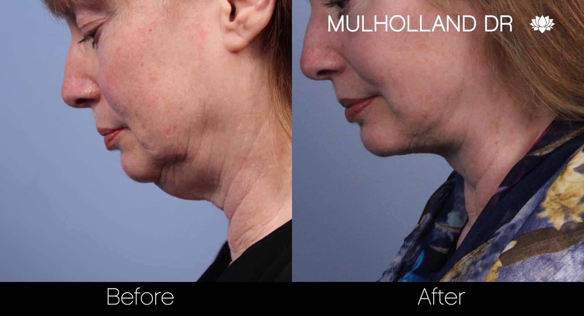 Neck Lift- Before and After Gallery – Photo 40