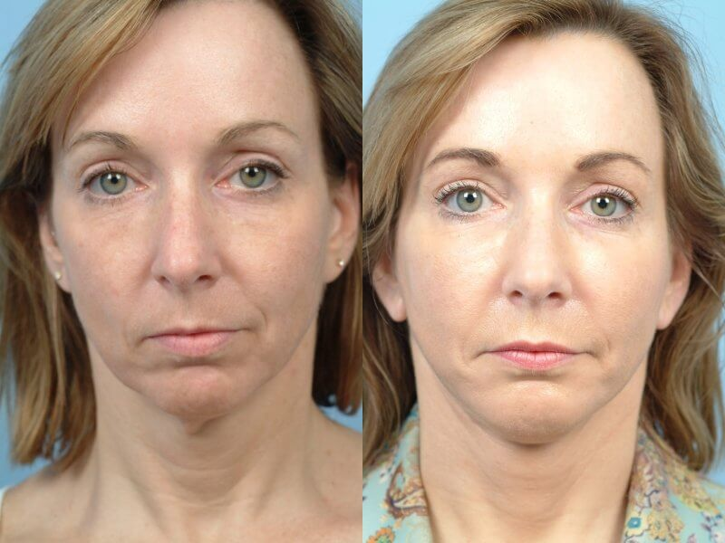 ThreadLift - Before and After Gallery – Photo 38