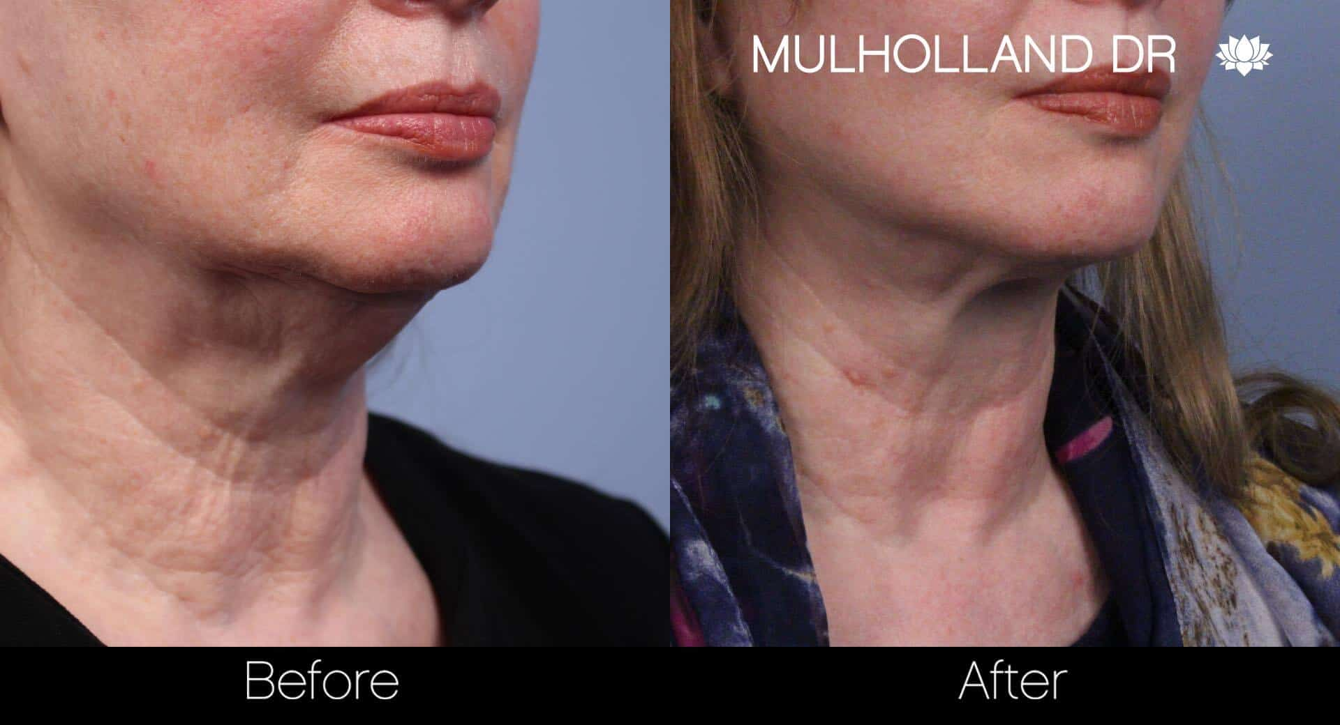 Neck Lift- Before and After Gallery – Photo 41