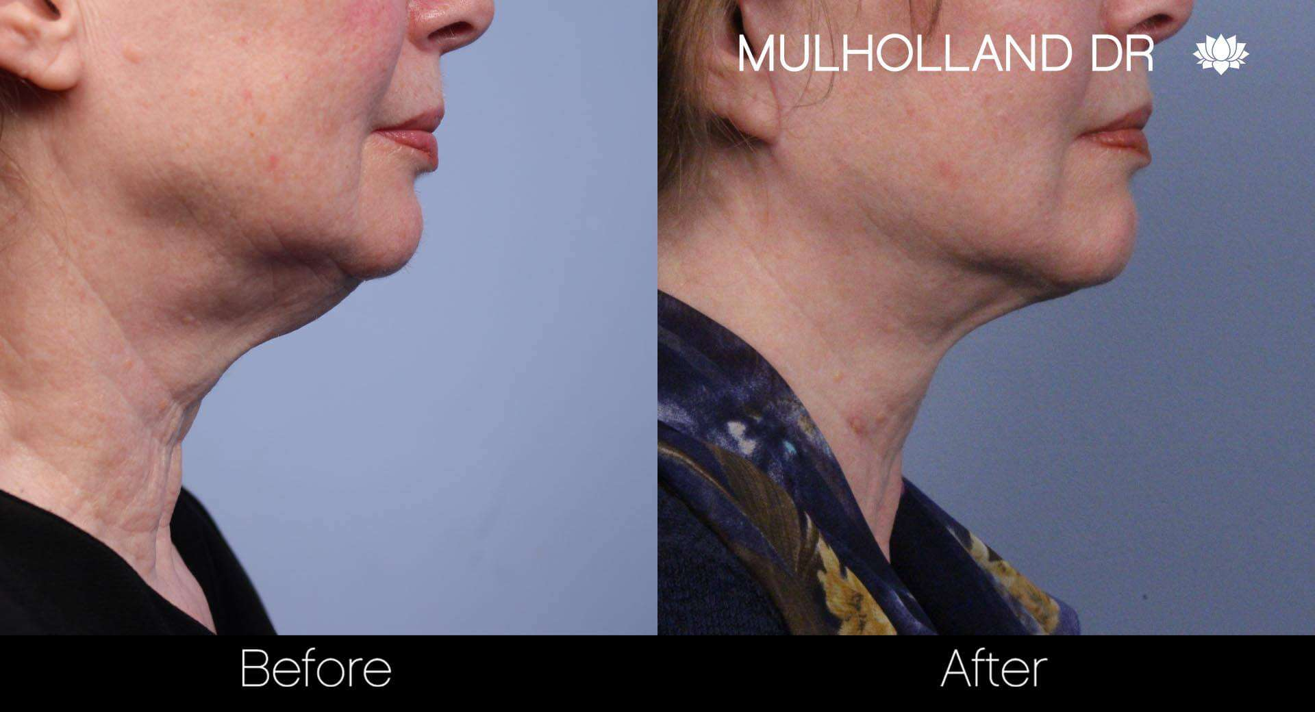 Neck Lift- Before and After Gallery – Photo 42