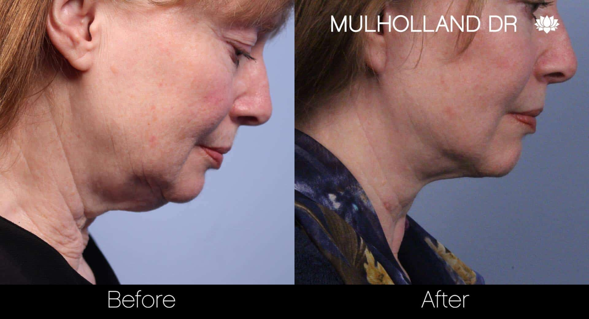 Neck Lift- Before and After Gallery – Photo 43