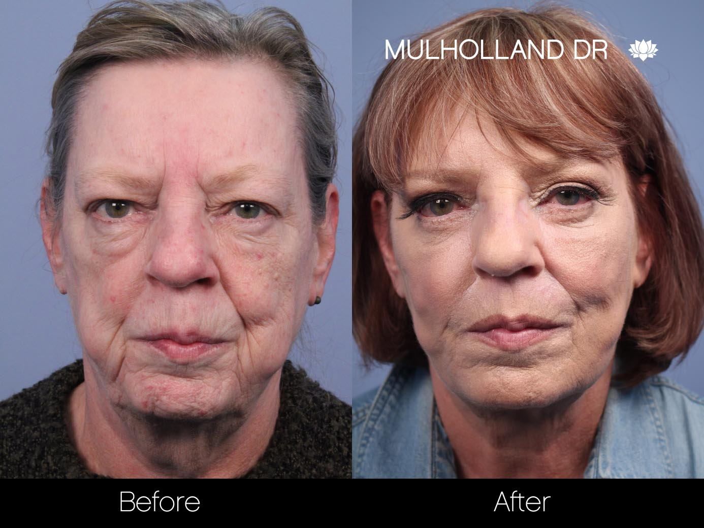 Cheek Lift - Before and After Gallery – Photo 45