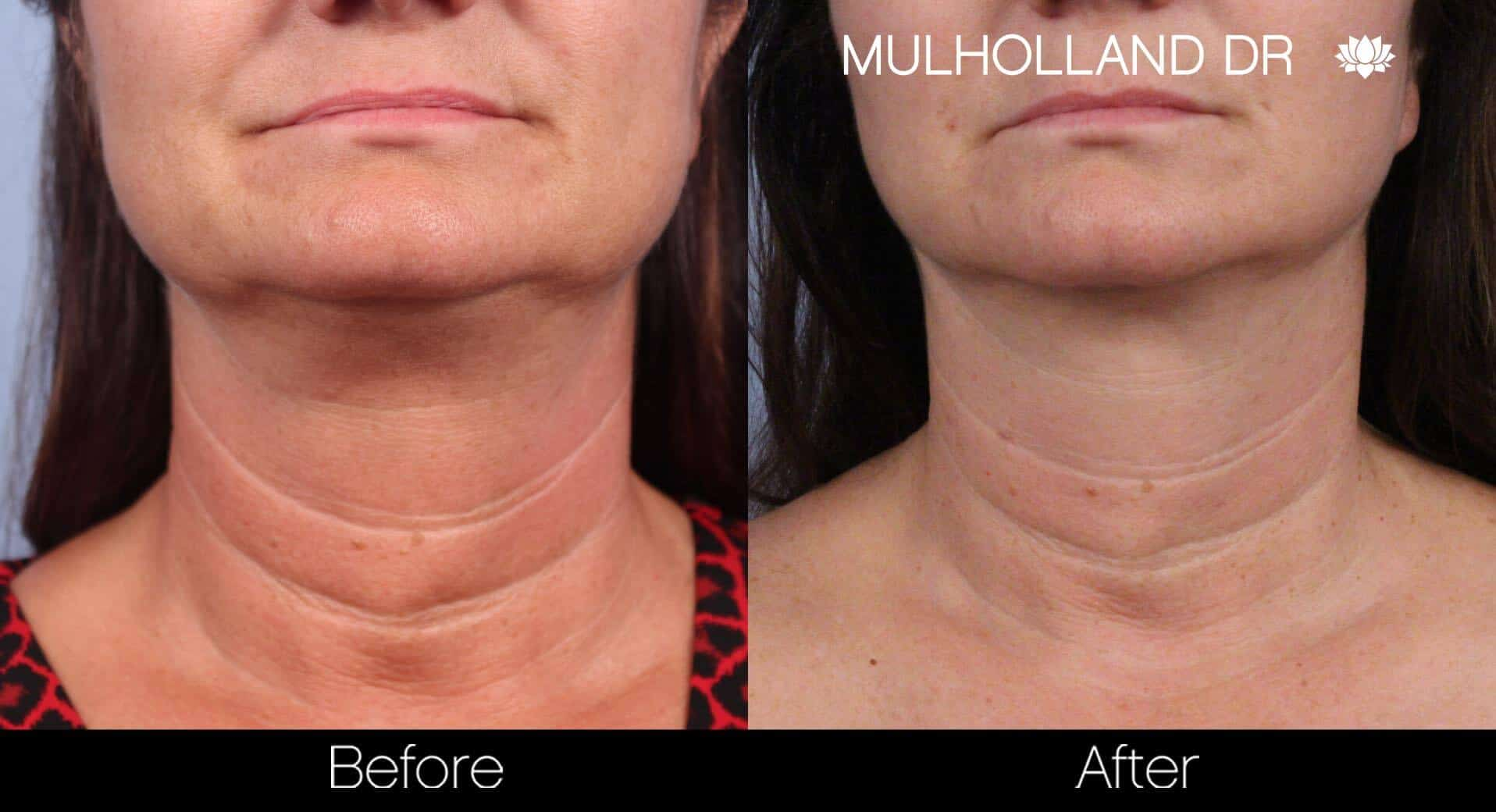 Neck Lift- Before and After Gallery – Photo 44