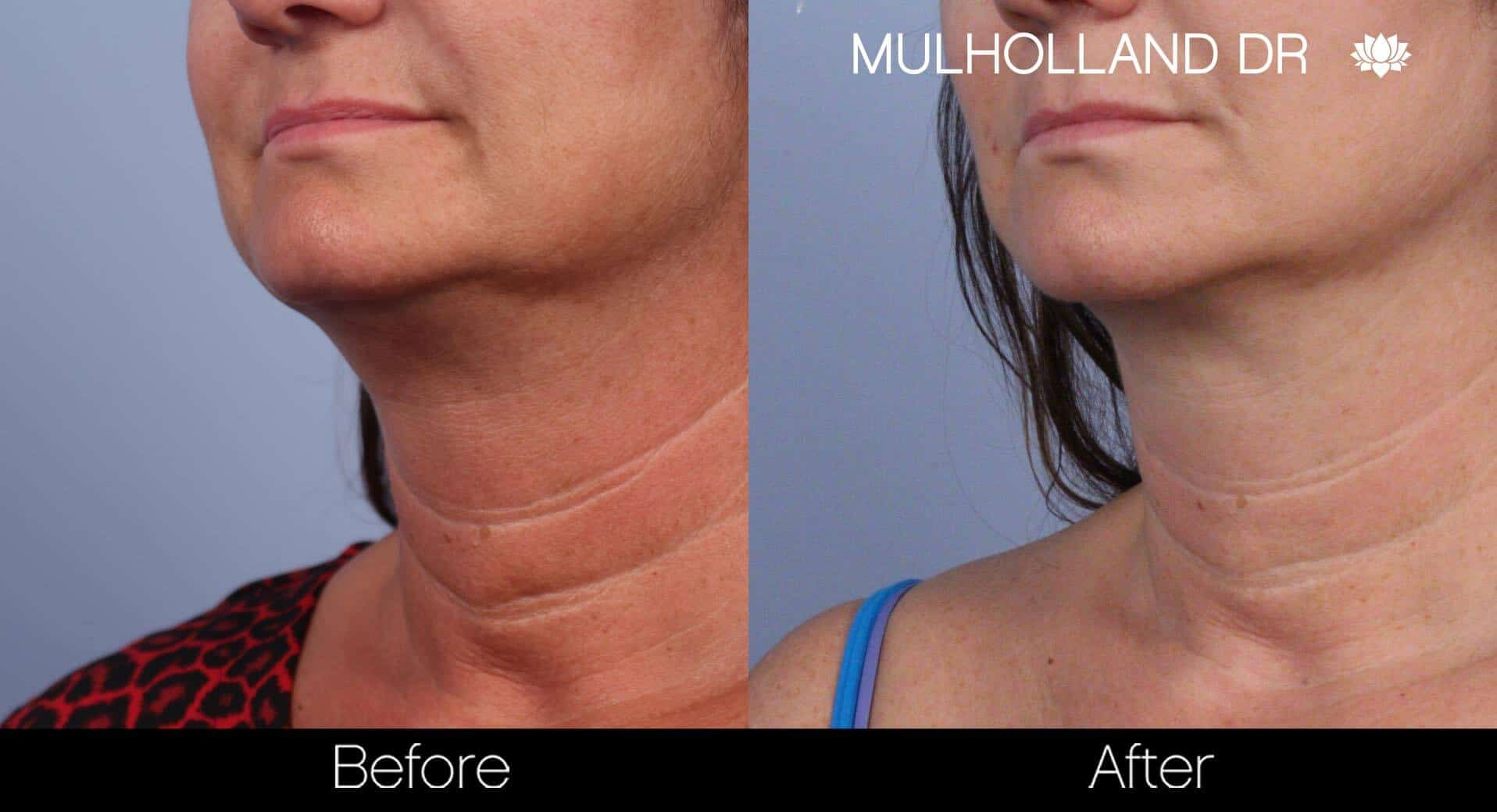 Neck Lift- Before and After Gallery – Photo 45
