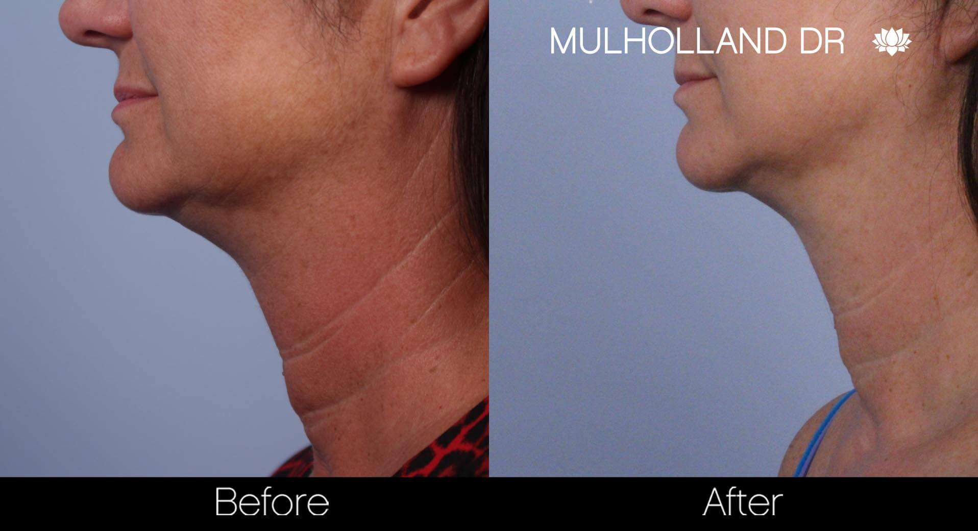 Neck Lift- Before and After Gallery – Photo 46