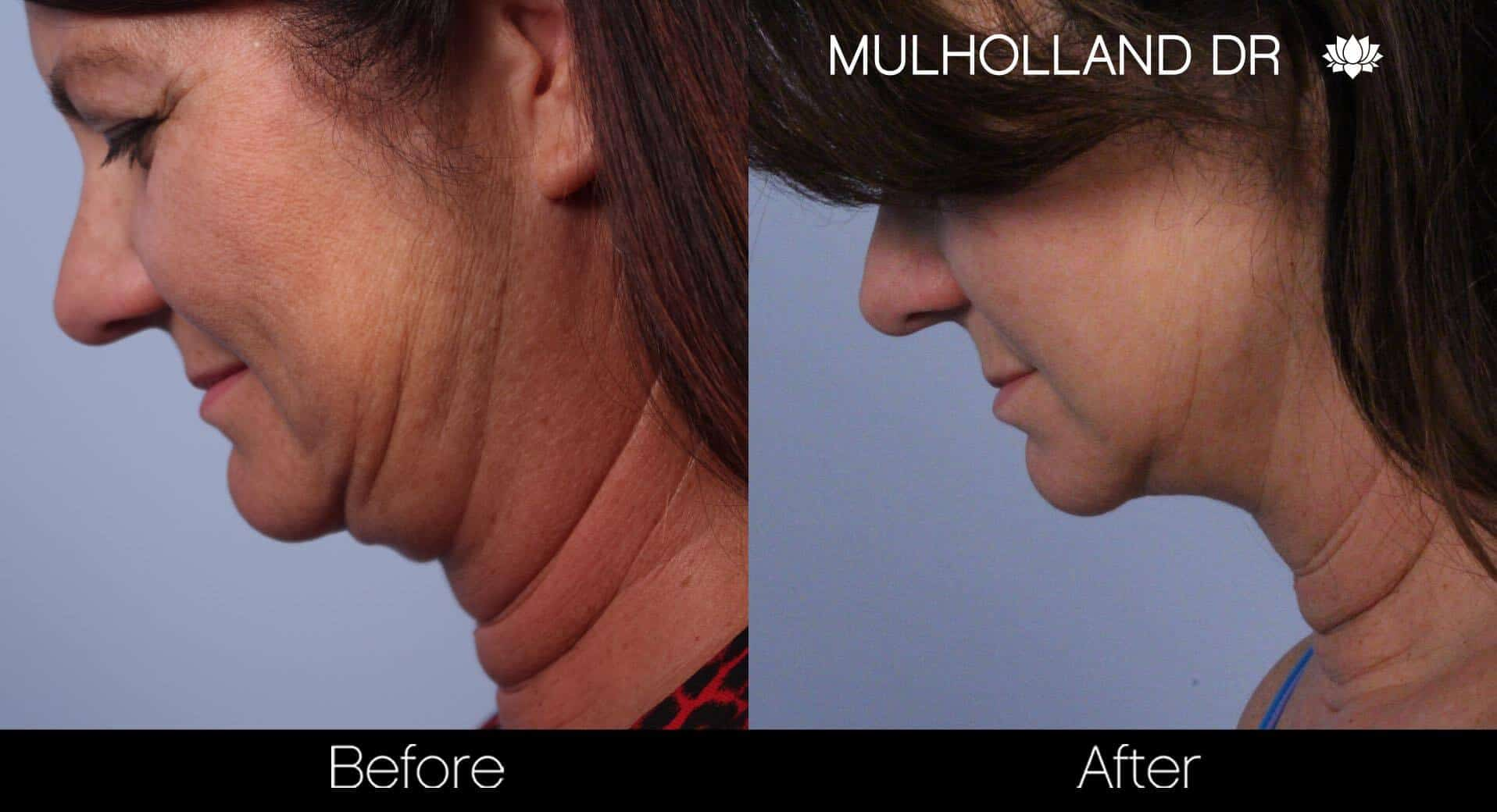 Neck Lift- Before and After Gallery – Photo 47