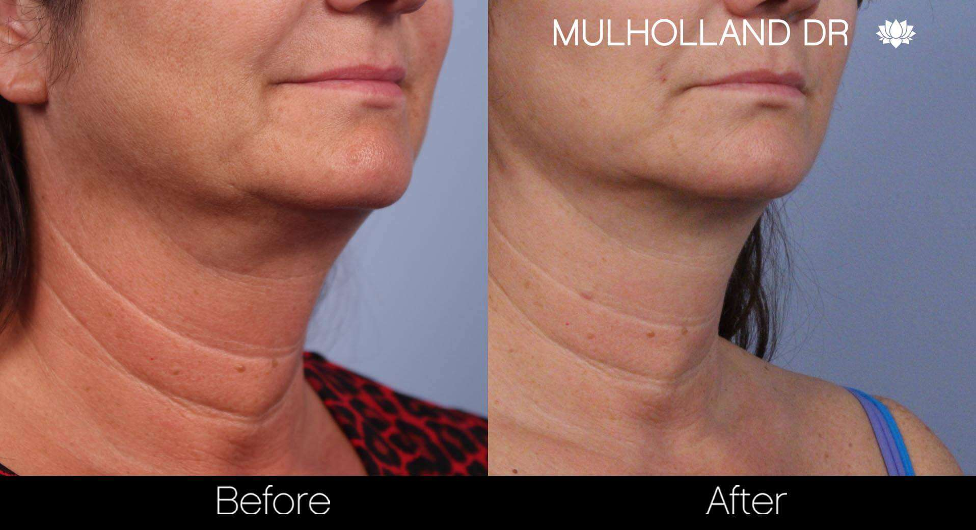 Neck Lift- Before and After Gallery – Photo 48