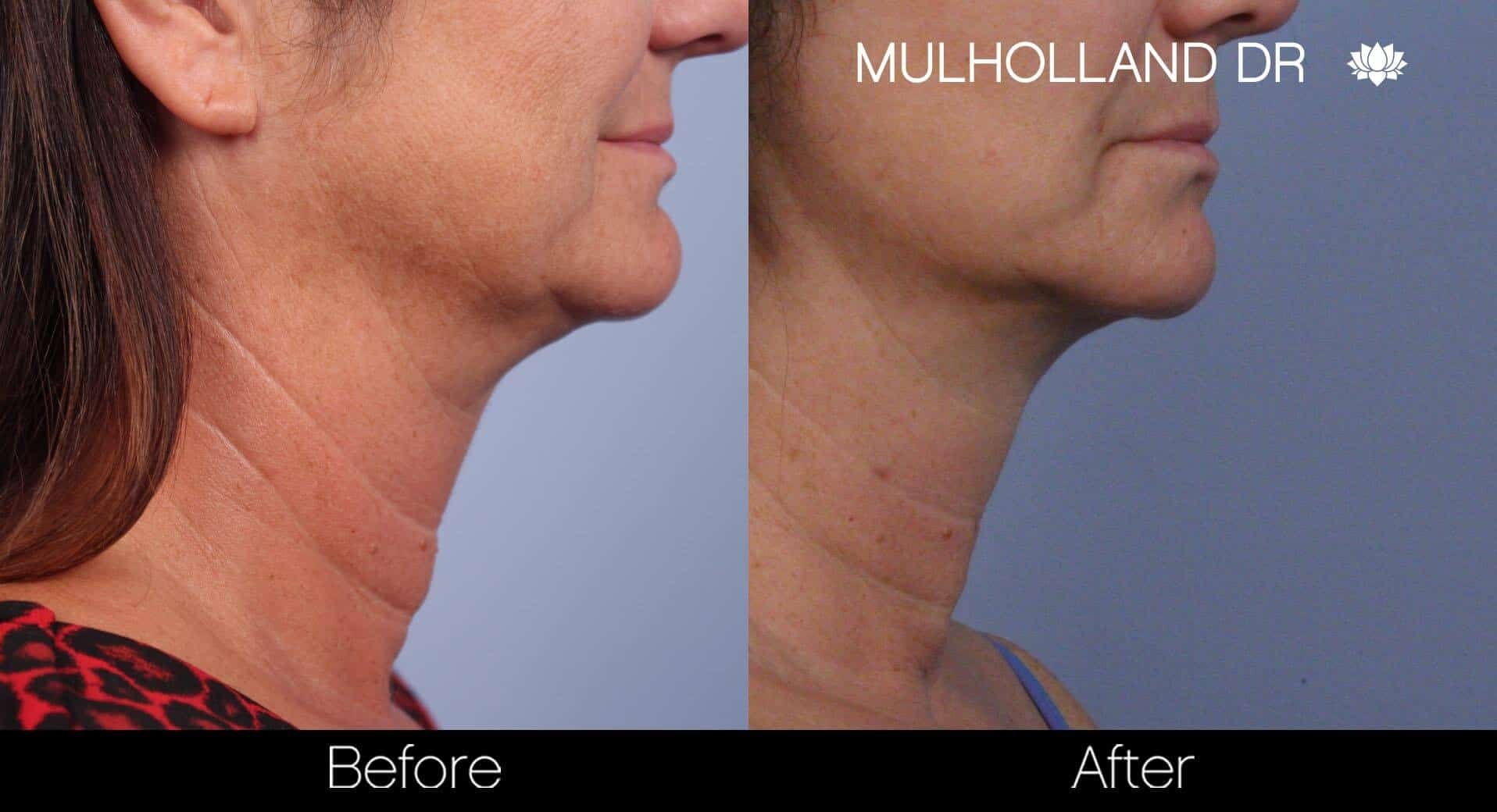Neck Lift- Before and After Gallery – Photo 49