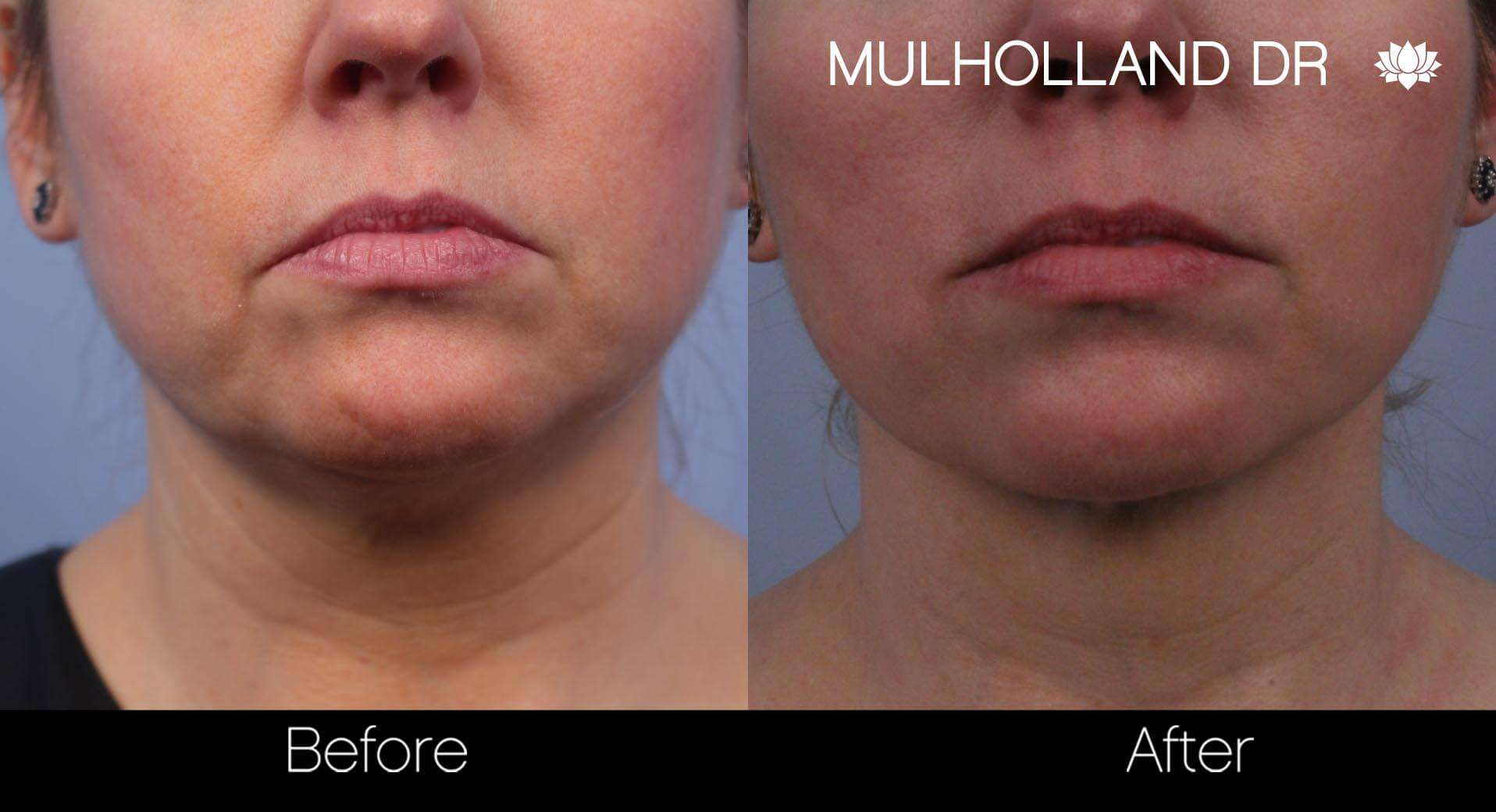 Neck Lift- Before and After Gallery – Photo 50