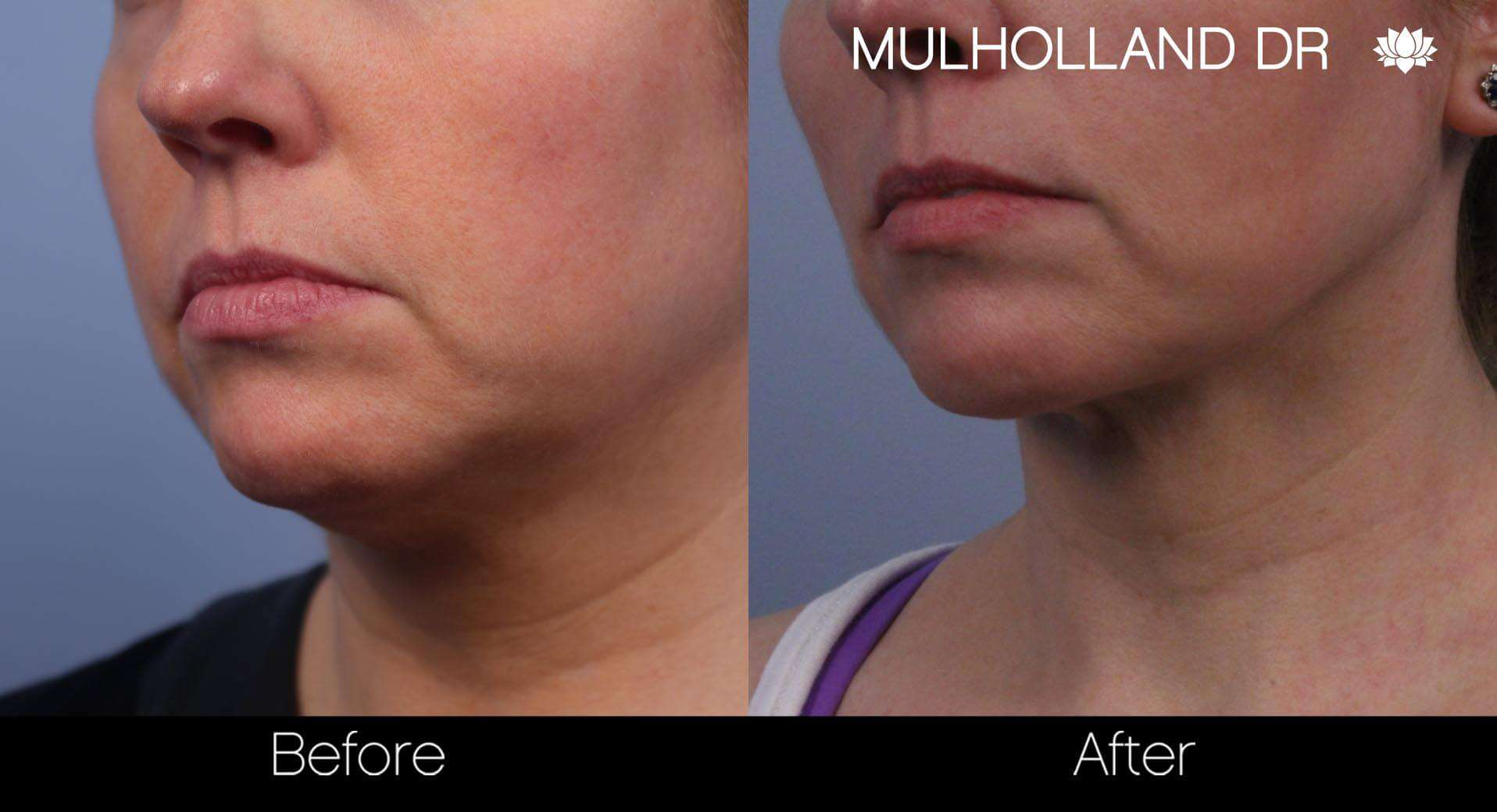 Neck Lift- Before and After Gallery – Photo 51