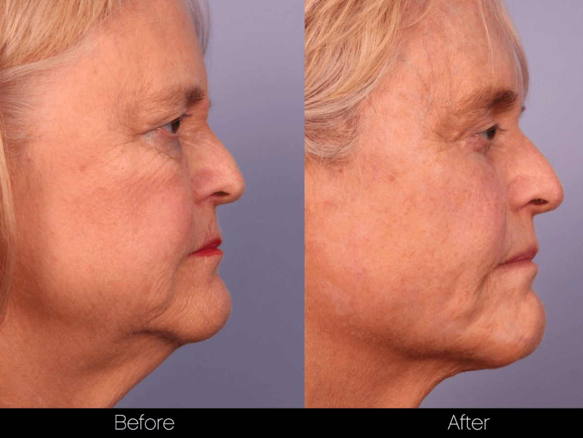 ThreadLift - Before and After Gallery – Photo 50