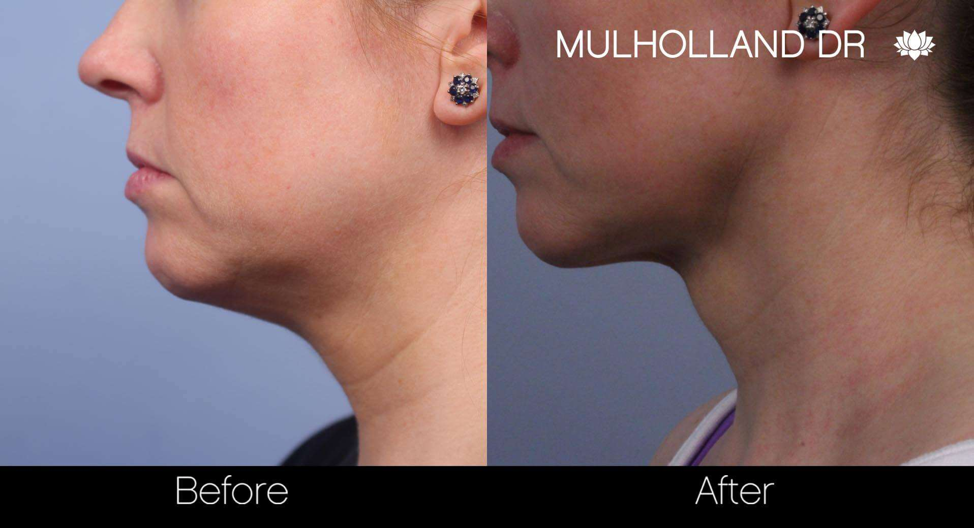 Neck Lift- Before and After Gallery – Photo 52