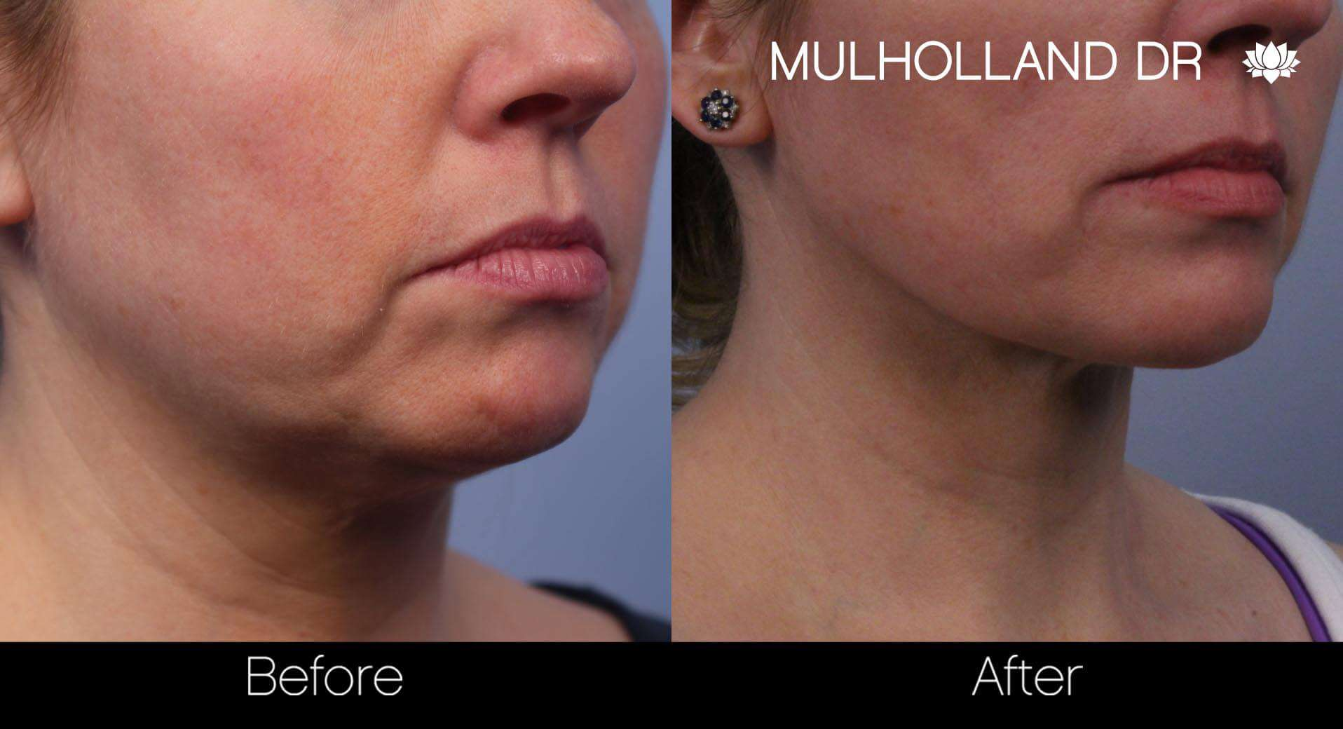 Neck Lift- Before and After Gallery – Photo 53