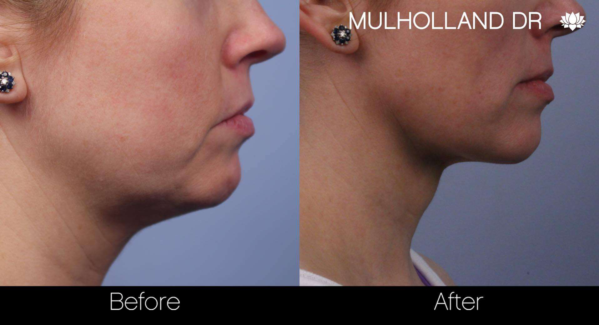 Neck Lift- Before and After Gallery – Photo 54