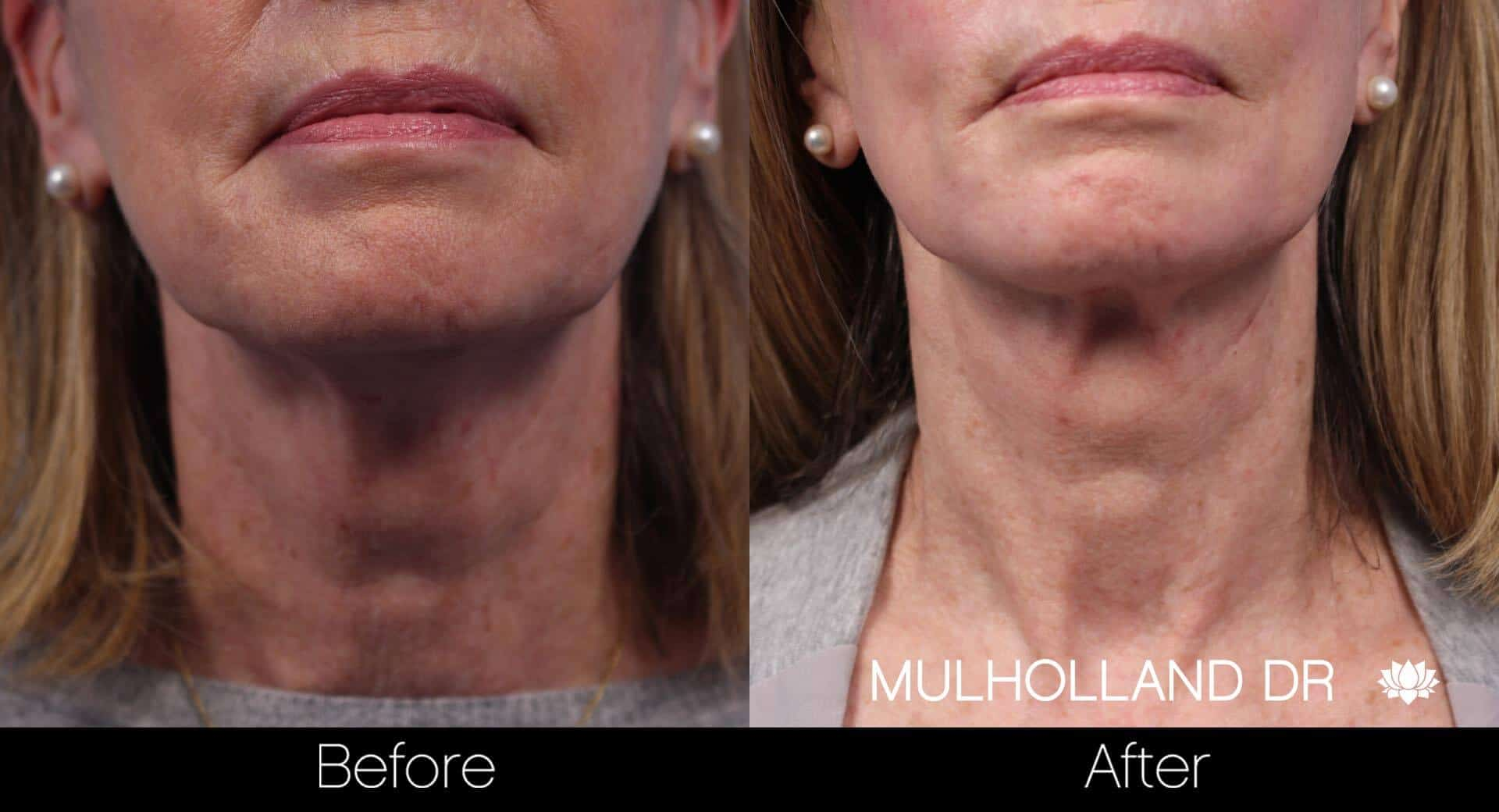 Neck Lift- Before and After Gallery – Photo 55