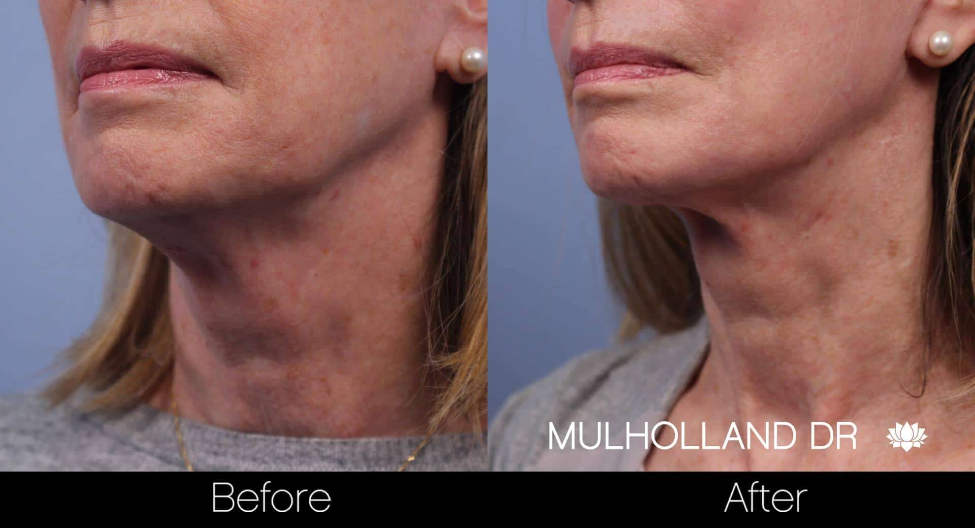 Neck Lift- Before and After Gallery – Photo 56