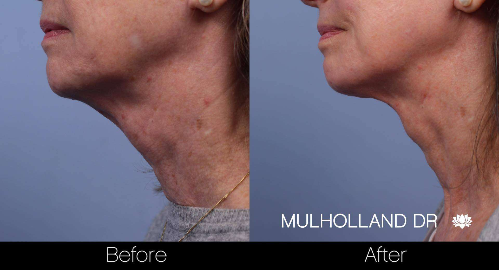 Neck Lift- Before and After Gallery – Photo 57