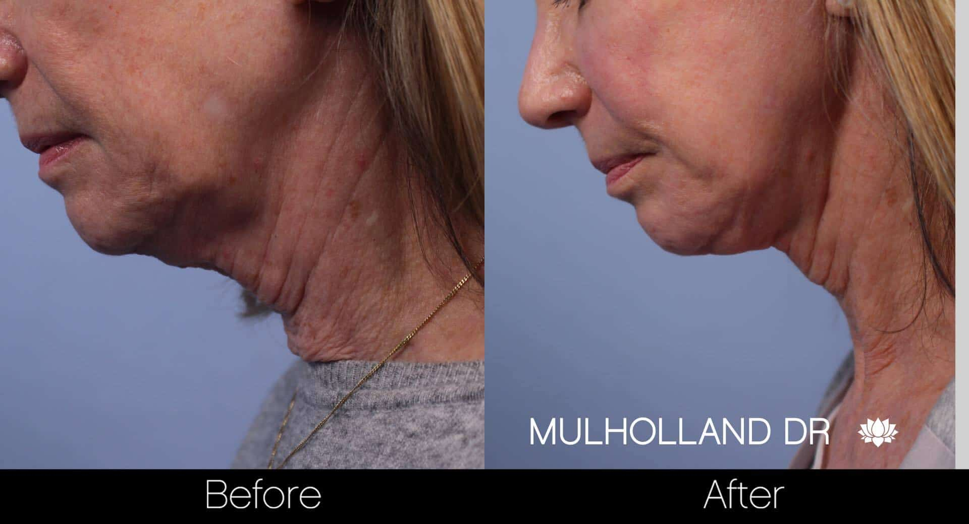 Neck Lift- Before and After Gallery – Photo 58