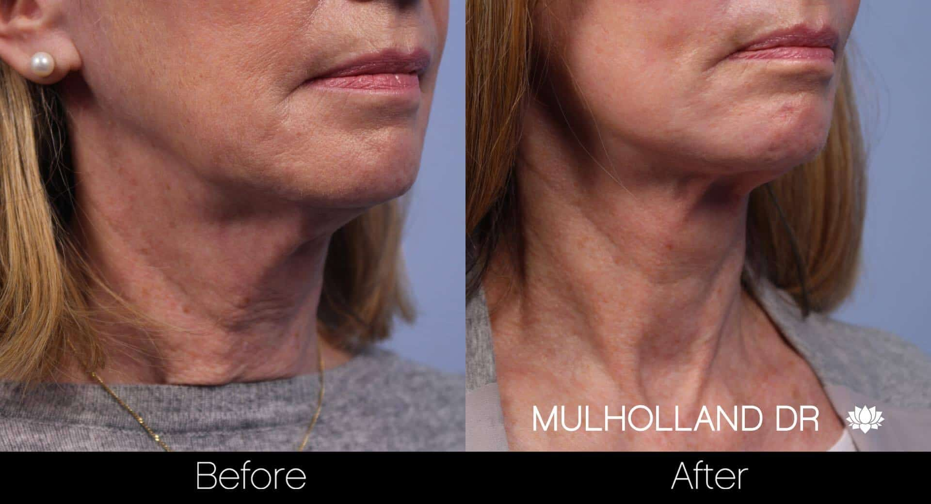 Neck Lift- Before and After Gallery – Photo 59