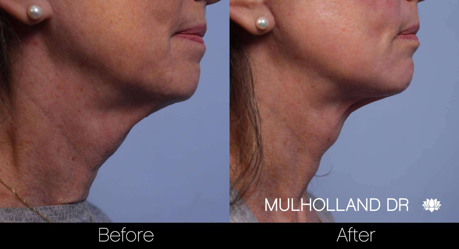 Neck Lift- Before and After Gallery – Photo 60