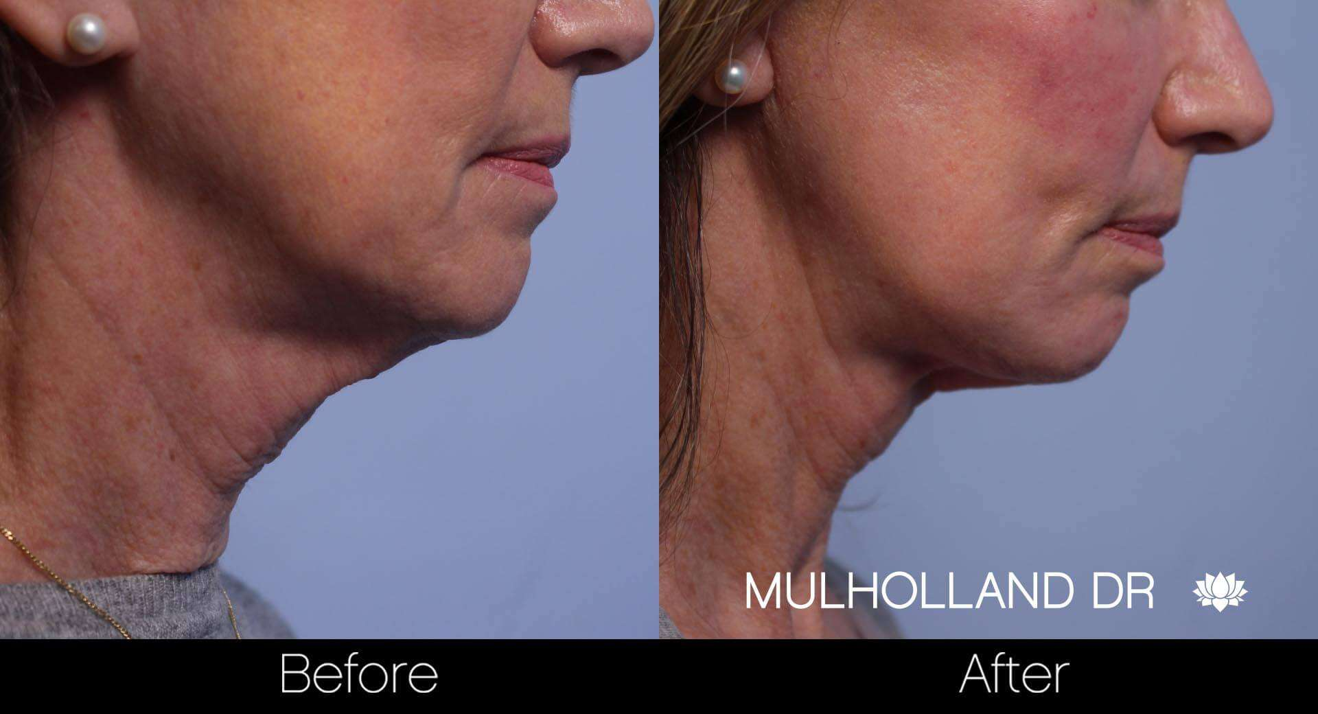 Neck Lift- Before and After Gallery – Photo 61