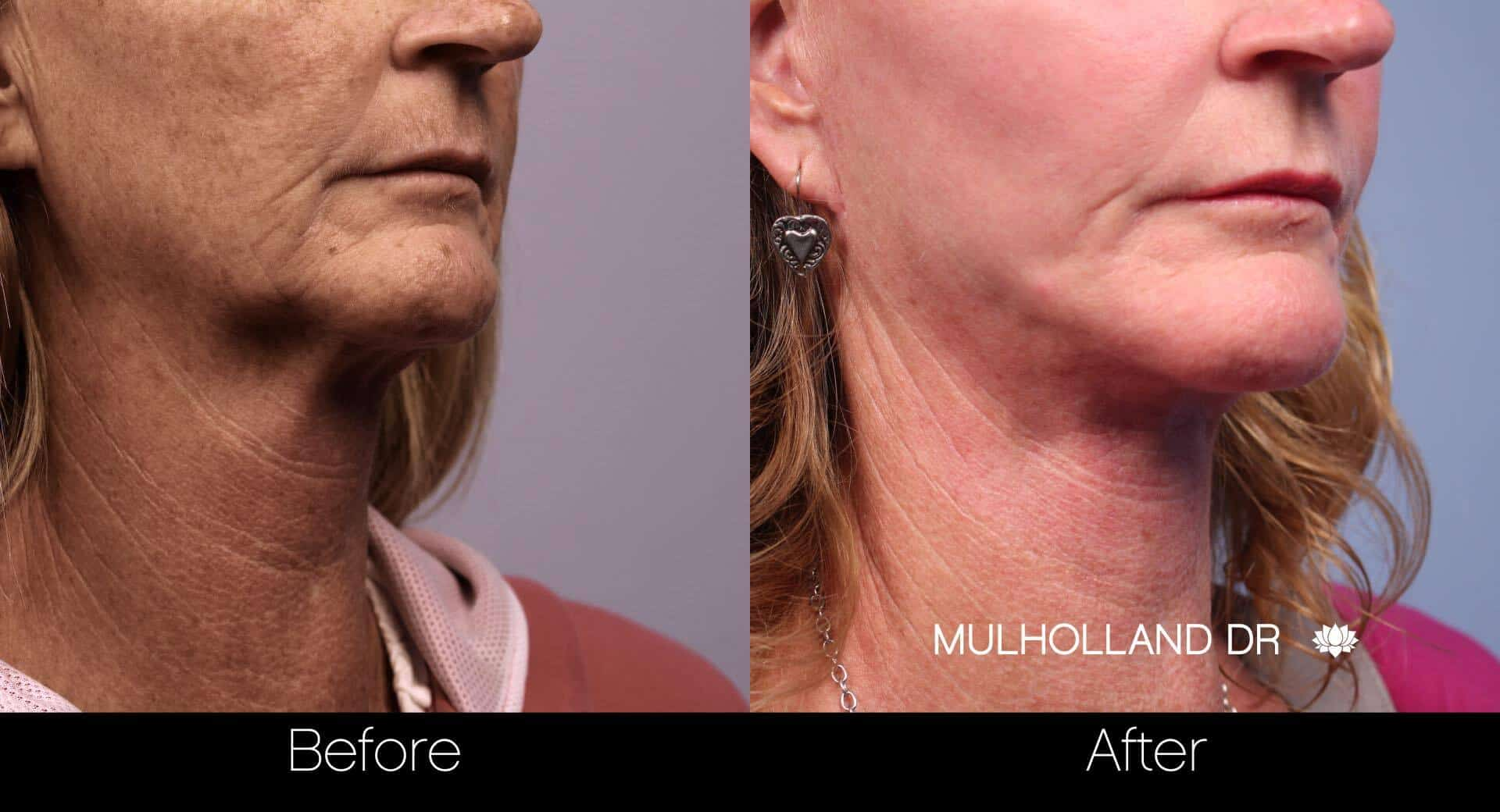 Neck Lift- Before and After Gallery – Photo 62
